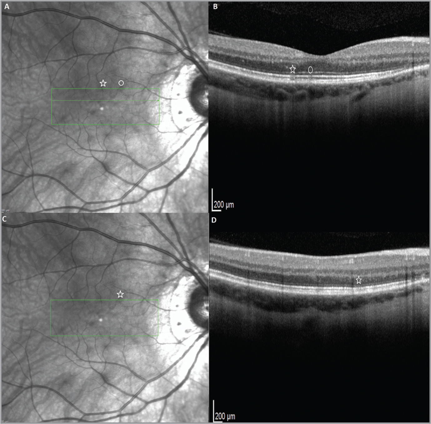 One month following the 2-year follow-up, the lesions seen on infrared radiance (IR) (A, C) were smaller in size and less numerous on IR image 3A and 3B. However, there were persistent outer segment / retinal pigment epithelium interface defects (star and circle) (B, D).