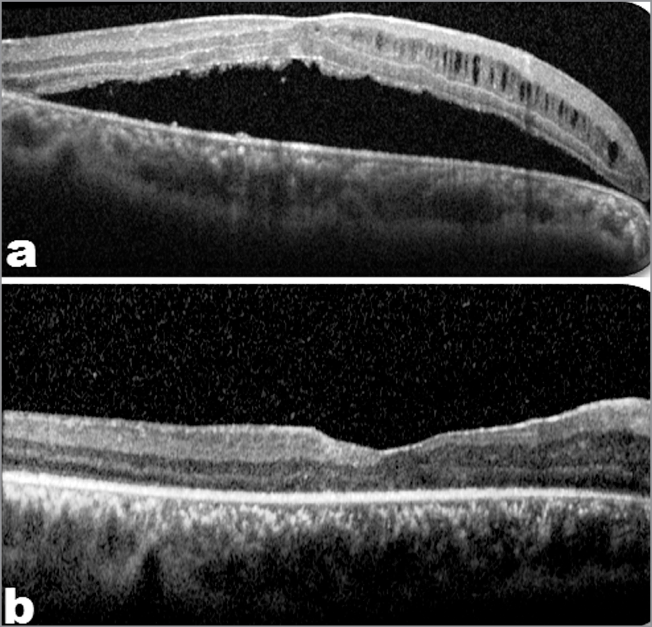 Preoperative (a) and postoperative (b) optical coherence tomography scans of patient 1 of the internal limiting membrane (ILM)-stuffing group showing complete resolution of outer retinal schisis and neurosensory detachment following inverted ILM stuffing over the pit in group 1.