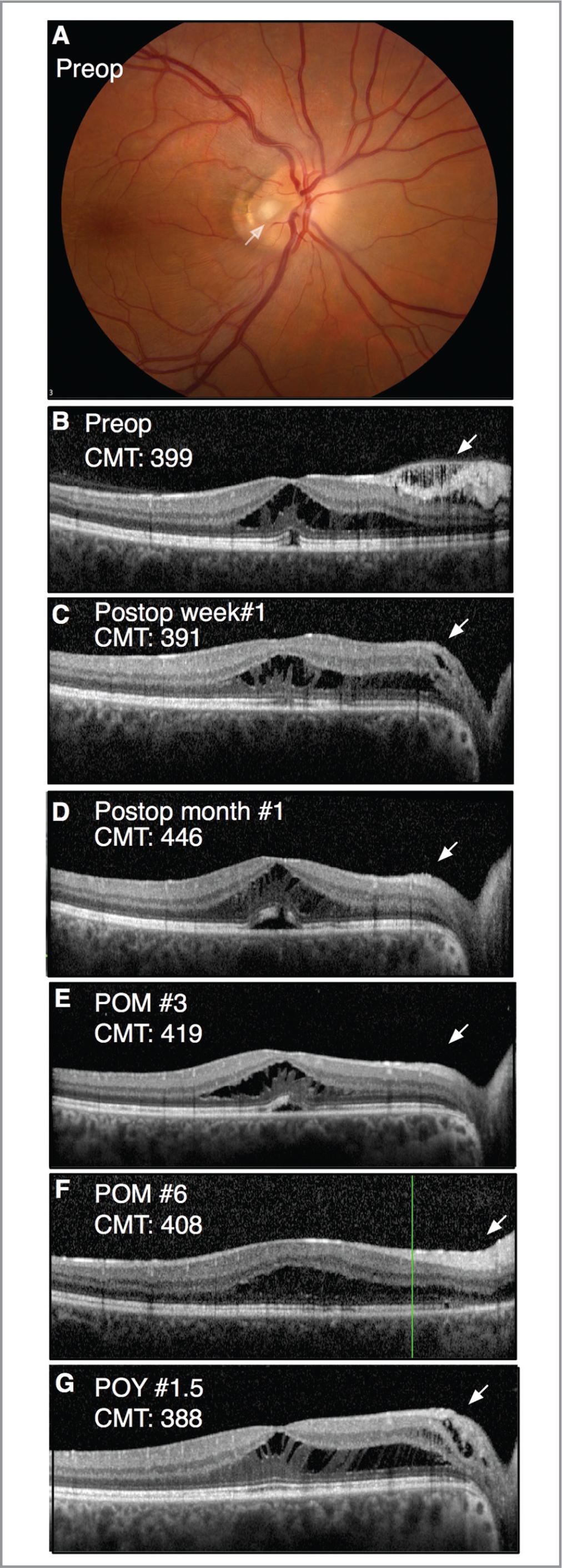 Case 3. (A) Fundus photograph of the right eye showed a temporal optic disc pit with serous macular retinal detachment and an epiretinal membrane. (B) Preoperative optical coherence tomography shows a mild nasal epiretinal membraneand inner and outer schisis. (C) At postoperative week 1, macular schisis was reduced with significant anatomical flattening of the inner retinal schisis. (D–F) At postoperative months 1 through 3, macular schisis improved with gradual flattening of the outer retinal cystoid changes. (G) At 18 months postoperatively, there was asymptomatic mild macular edema with residual macular schisis.