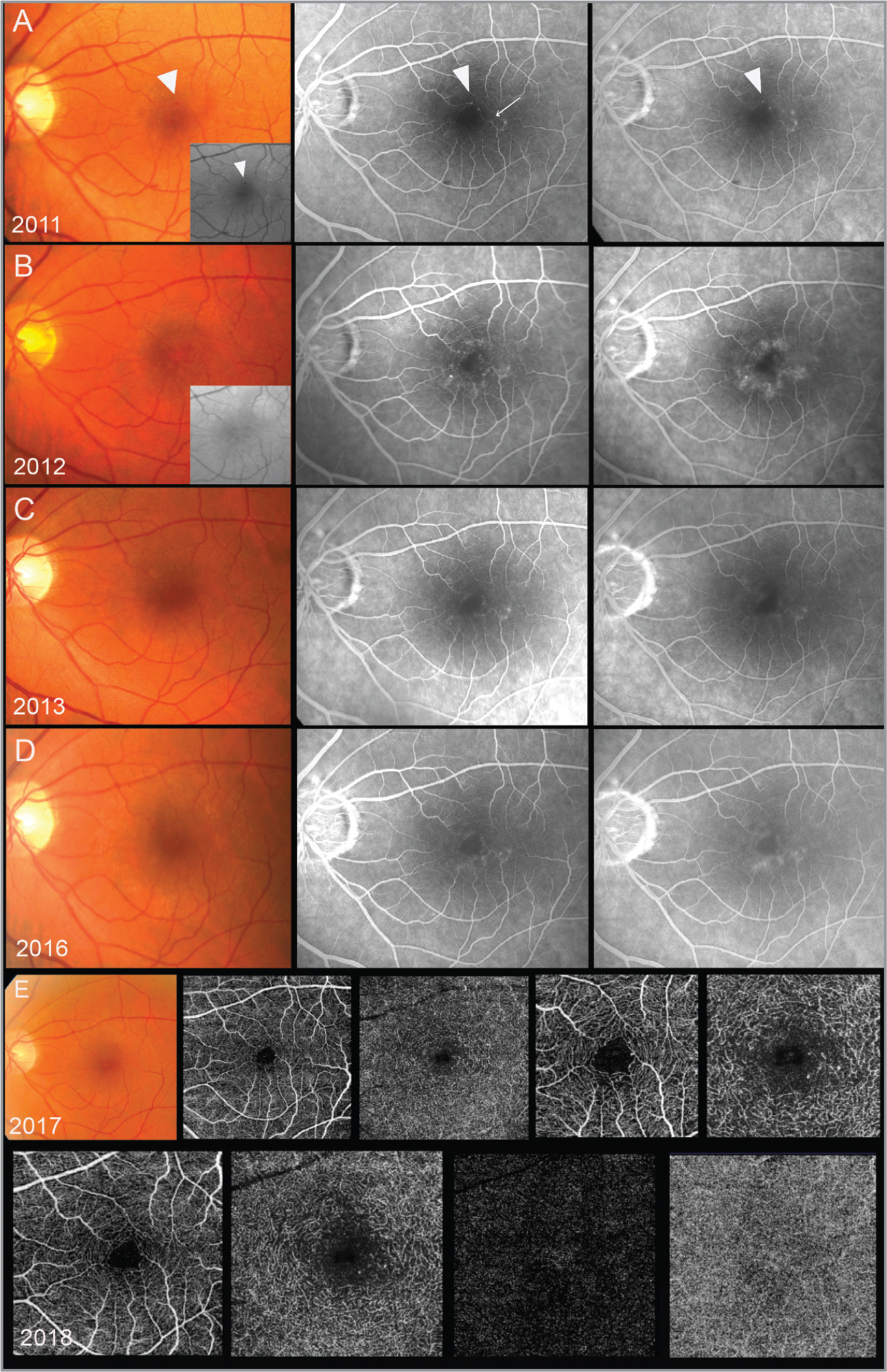 Fundus imaging follow-up of the left eye. (A) Color fundus and red-free photographs, early phase and late-phase fluorescein angiography (FA) of the left eye at first evaluation (July 2011). Color fundus and red-free image shows perifoveal ectatic capillary and crystalline deposits. Early stage FA shows more ectatic capillaries with mild leakage at the late-stage FA. (B) Color fundus and red-free photograph, early phase and late-phase FA (November 2012). Telangiectasia is not detectable at the color fundus and red-free images. Early stage and late-stage FA show several macular telangiectasia with leakage phenomena. (C) Color fundus and red-free photographs, early phase and late-phase FA (August 2013). (D) Color fundus and red-free photographs, early-phase and late-phase FA (October 2016). (E) Color fundus photograph and optical coherence tomography angiography (OCTA) of superficial and deep vascular network (May 2017). The figures show dilated vessels in the deep retinal capillary plexus that are the most pronounced in the region temporal to the fovea. (F) OCTA of superficial and deep vascular network, outer retinal segments, and choriocapillaris (January 2018). Images show 4.5 × 4.5 OCTA scans.