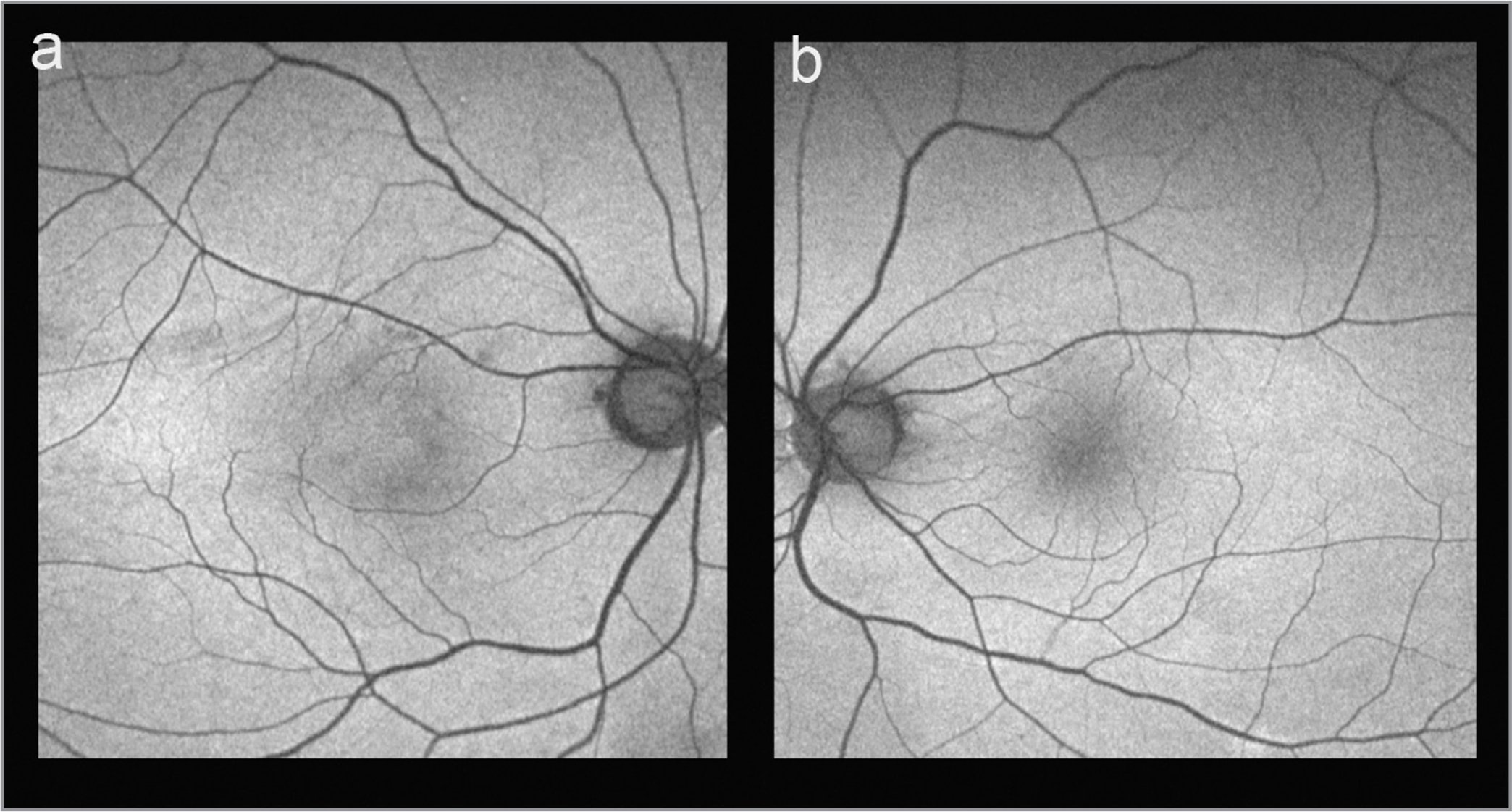 Fundus autofluorescence (FAF) image of the right eye (A) and the left eye (B). Loss of normal foveal hypoautofluorescence in the right eye (A). Normal FAF in the left eye (B).