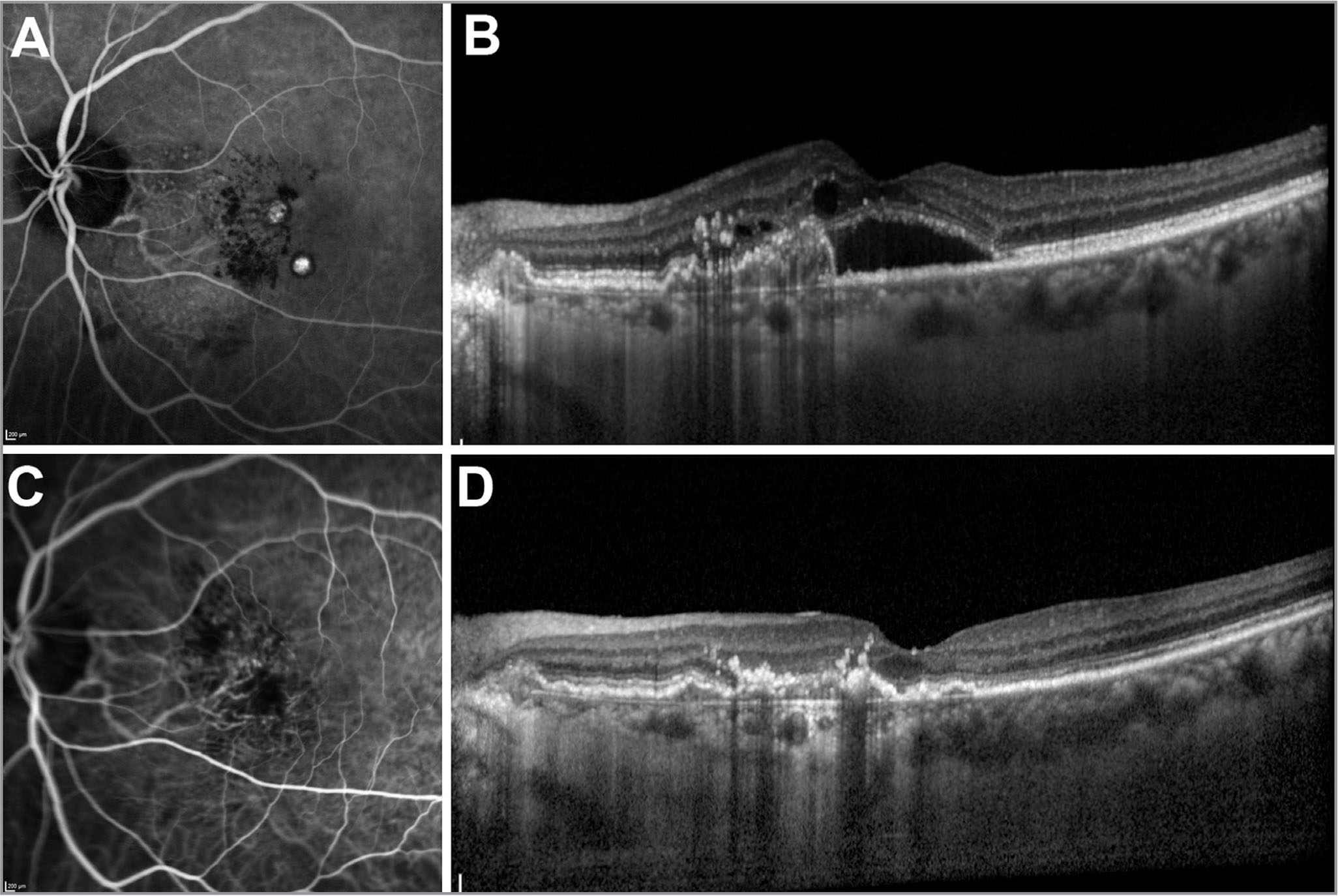 Treatment of polypoidal choroidal vasculopathy (PCV). (A) Indocyanine green angiography (ICGA) on presentation, illustrating characteristic polypoidal lesions and a branching vascular network (BVN). (B) Optical coherence tomography (OCT) on presentation, showing subretinal fluid, intraretinal cysts, and elevation of the retinal pigment epithelium (RPE) caused by the PCV lesion. The sharp elevation of RPE near the fovea corresponds to a polypoidal lesion. (C) ICGA following treatment with photodynamic therapy and a course of anti-vascular endothelial growth factor agents. The polypoidal lesions have resolved, although the BVN is still present. (D) OCT scan taken after treatment, showing resolution of the subretinal and intraretinal fluid. The RPE elevation has also reduced in height.