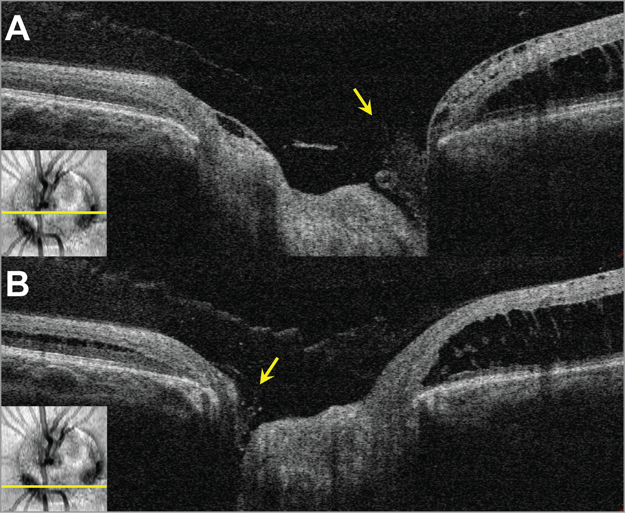High-resolution optical coherence tomography (OCT) of the distinct optic pits with separate laminar defects and glial plugs, temporally, (A) and nasally (B) as indicated by arrows. Insets depict the cross-section level for each OCT image.