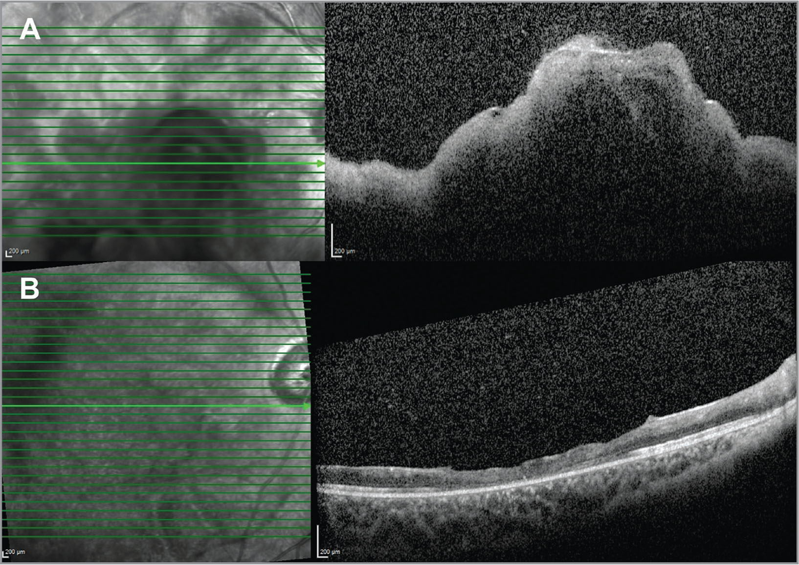 (A) Right eye optical coherence tomography (OCT) on presentation, showing nerve fiber layer edema and the presence of subretinal fluid. (B) Right eye OCT after 4 months.