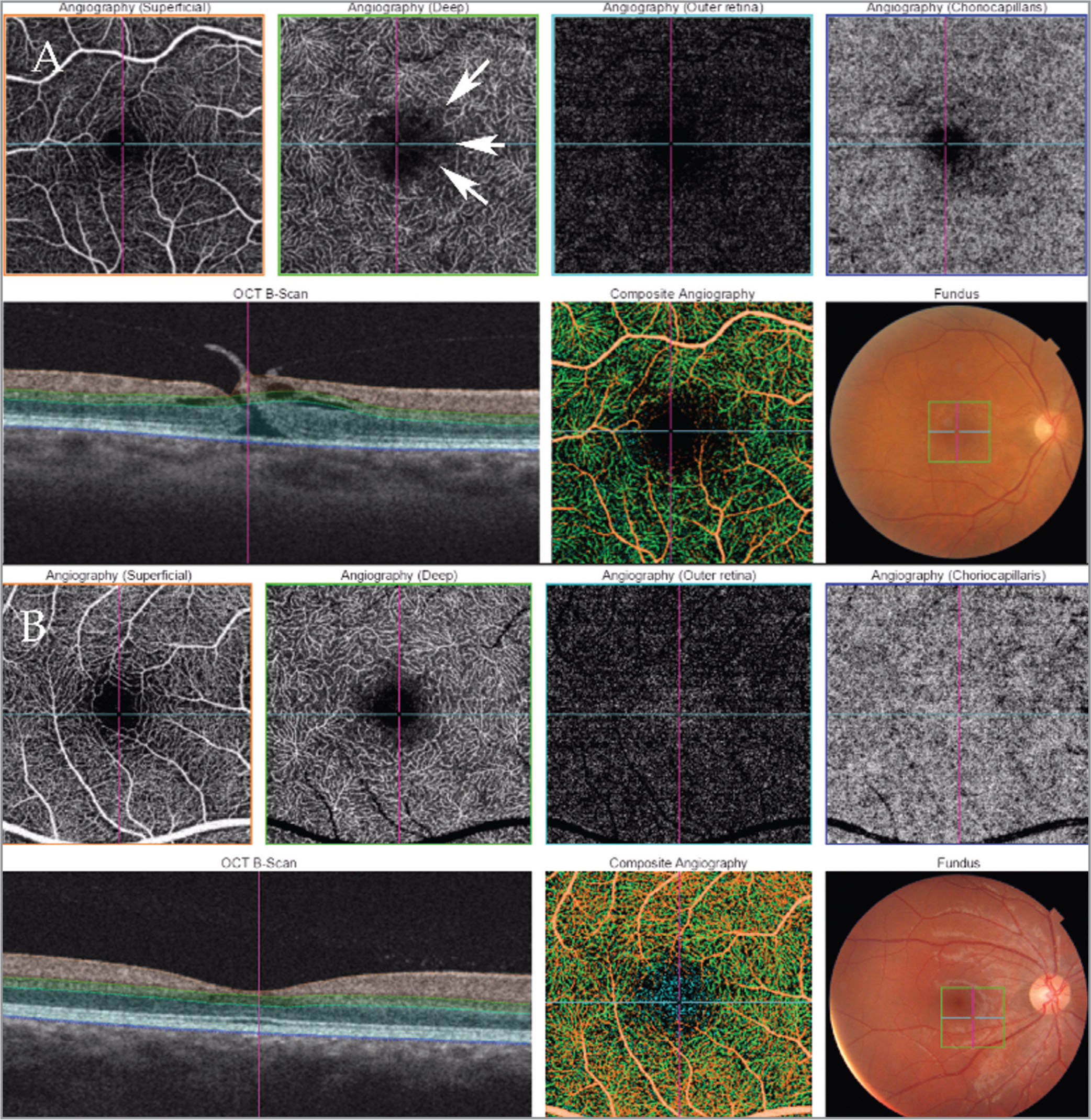Swept-source optical coherence tomography angiography (SS-OCTA) comparison between a stage two macular hole (top) and a healthy eye (bottom). Orange frame: Retina at the level of superficial vessels. Green frame: Retina at the level of deep retinal vessels. Light blue frame: Retina at the level of retinal pigment epithelium. Dark blue frame: Level of choriocapillaris. (A) Full-thickness stage two macular hole. At the level of deep retina vessels, slight disarrangement at the margin of the foveal avascular zone is visible. This corresponds to cystoid spaces visible in SS-OCT. At the level of choriocapillaris, a hyporeflective circle is visible, corresponding to the maximum diameter of the macular hole. (B) Healthy macula.