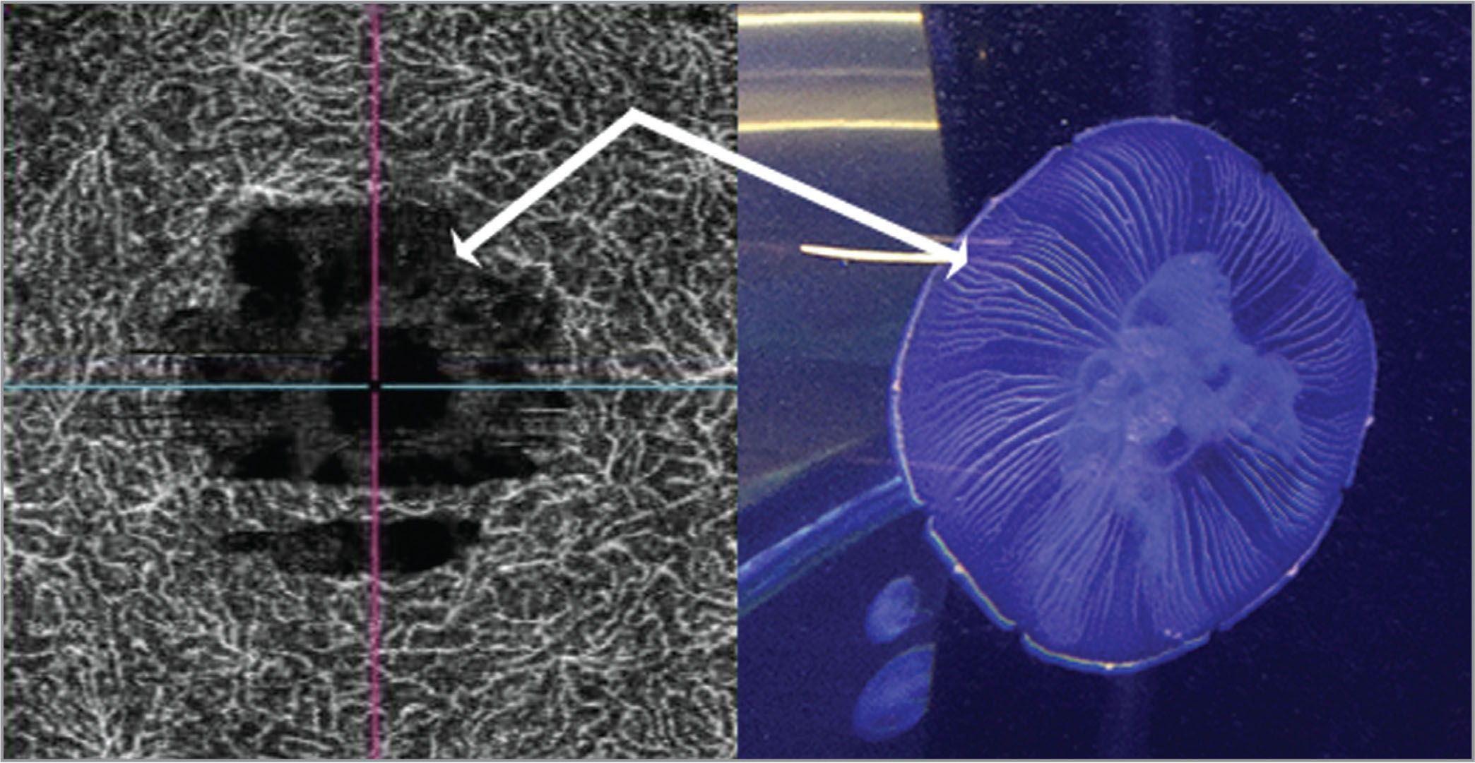 "Swept-source optical coherence tomography at the level of the deep vascular plexus resembling a jellyfish in shape. Probable cystoid spaces are represented as ""jellyfish digestive canals."" The hyperreflectiveness of those canals might suggest that some blood flow is present in the area of retinal edema around the macular hole. Vessels might be simply transposed because of the presence of the macular hole."