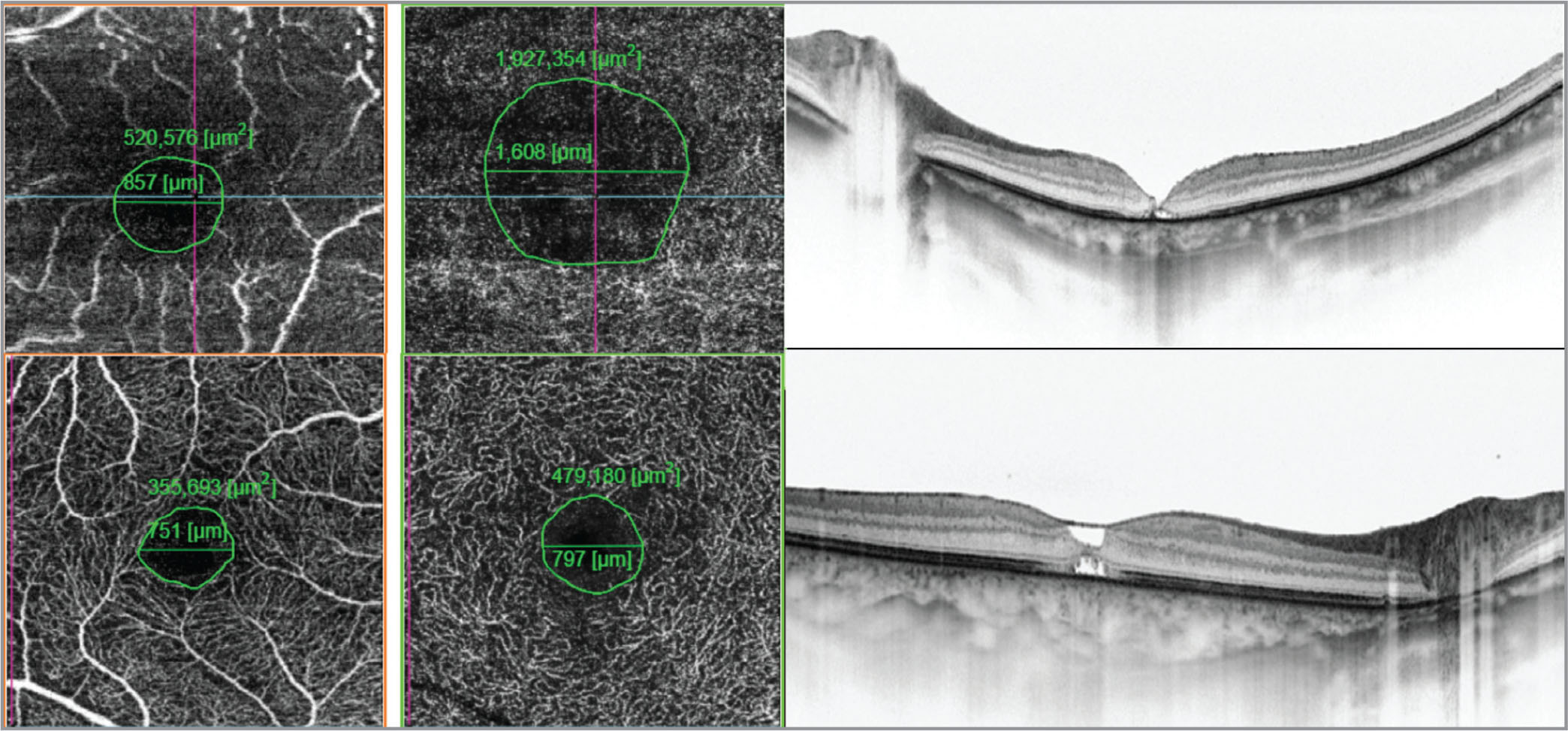 Increased size of the foveal avascular zone (FAZ) at the level of the deep retina vessel plexus corresponds with central retinal thickness 1 month after surgery. The green circle represents the area of the FAZ. Upper from left: Swept-source optical coherence tomography angiography (SS-OCTA) at the level of the superficial retinal vessels, SS-OCTA at the level of deep retinal vessels, and SS-OCT. Lower from left: SS-OCTA) at the level of the superficial retinal vessels, SS-OCTA at the level of deep retinal vessels, and SS-OCT.