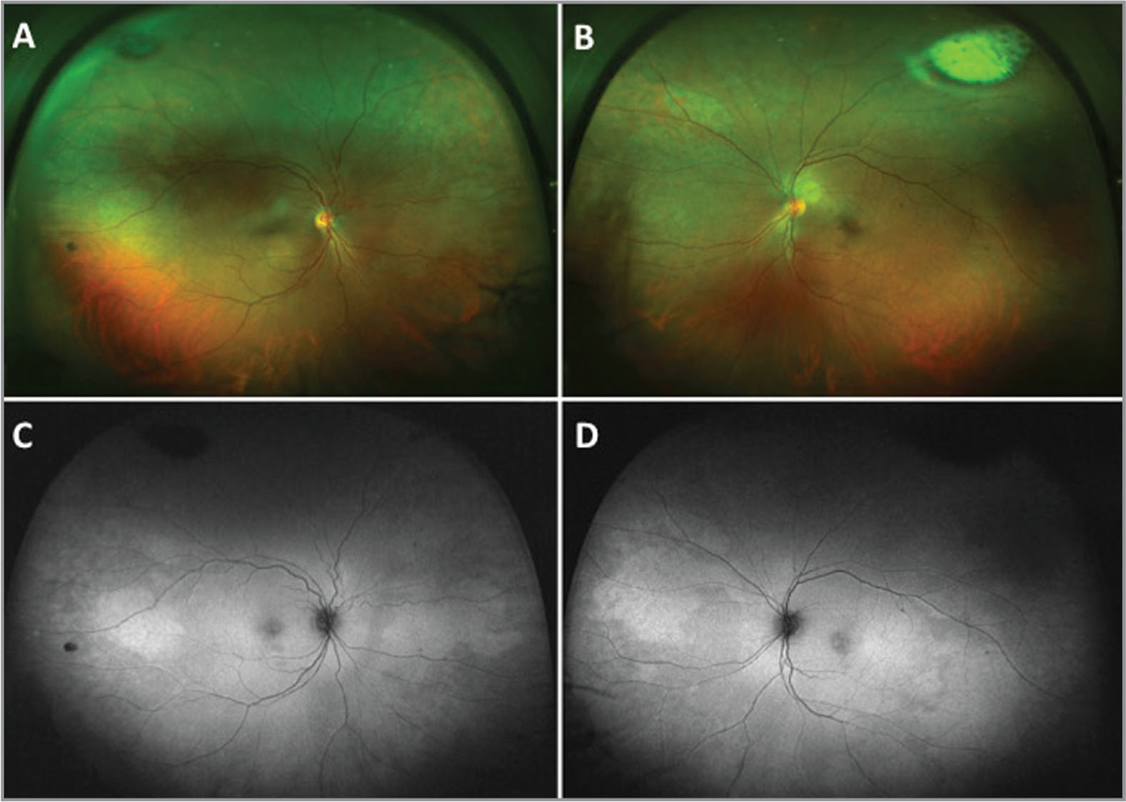 Widefield fundus photos of (A) the right eye and (B) the left eye showing patchy pigmentary changes (artifact noted in superotemporal quadrant.) Fundus autofluorescence (C) of the right eye and (D) of the left eye showing patchy hyperautofluorescence corresponding to the areas of pigmentary changes.
