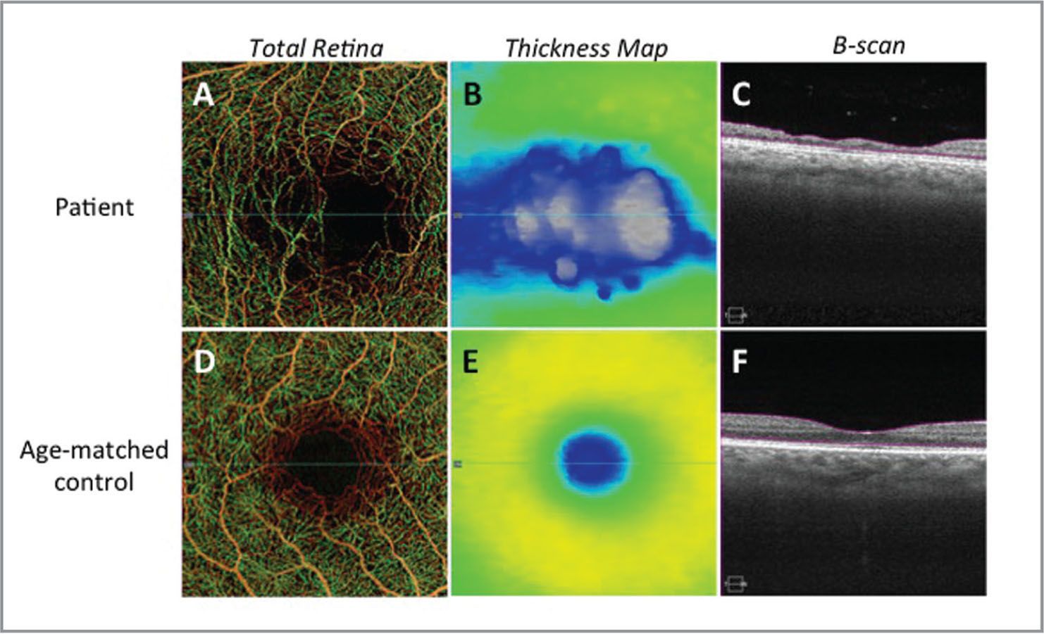 Swept-source optical coherence tomography angiography of the right eye. En face images of (A) total retinal vasculature flow, (B) total retinal thickness map, and (C) cross-sectional structural B-scans from this patient demonstrate a significant loss of the central macula microvasculature and retinal thinning. (D–F) Images from an age-matched control are provided for reference; en face images of (D) total retinal vasculature flow, (E) total retinal thickness map, and (F) cross-sectional structural B-scans of the central macula.