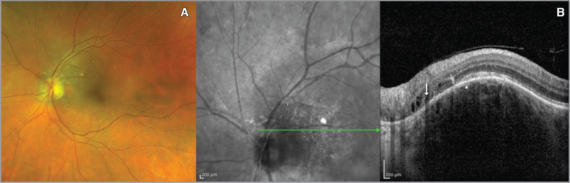 (A) A choroidal hemangioma along the superotemporal arcade. (B) On enhanced depth imaging optical coherence tomography, normal-looking honeycomb-like choriocapillaris (asterisk) with abnormalities in the outer photoreceptor and plexiform layers (arrow).