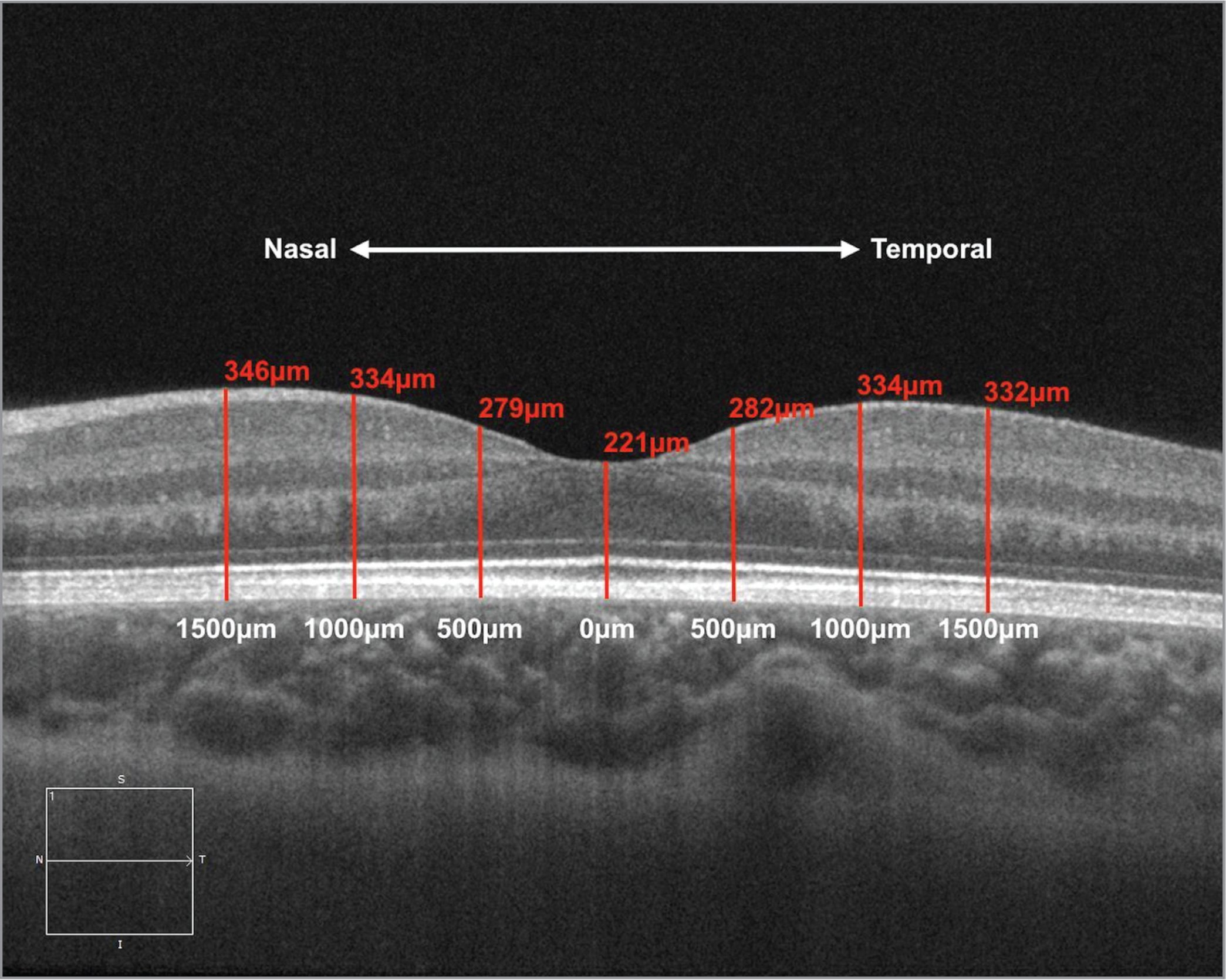 High-definition optical coherence tomography of the macula demonstrating the measurements (red) at the studied locations (white) on the horizontal scan