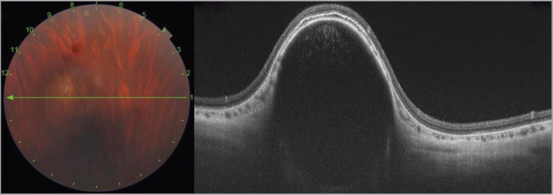 Swept-source optical coherence tomography imaging showing a well-defined scleral cyst with hyperreflective walls and internal hyporeflectivity, with smooth dome-shaped topography, elevating the choroid inward, compressing the choriocapillaries, with no subretinal fluid and intact photoreceptor layer.