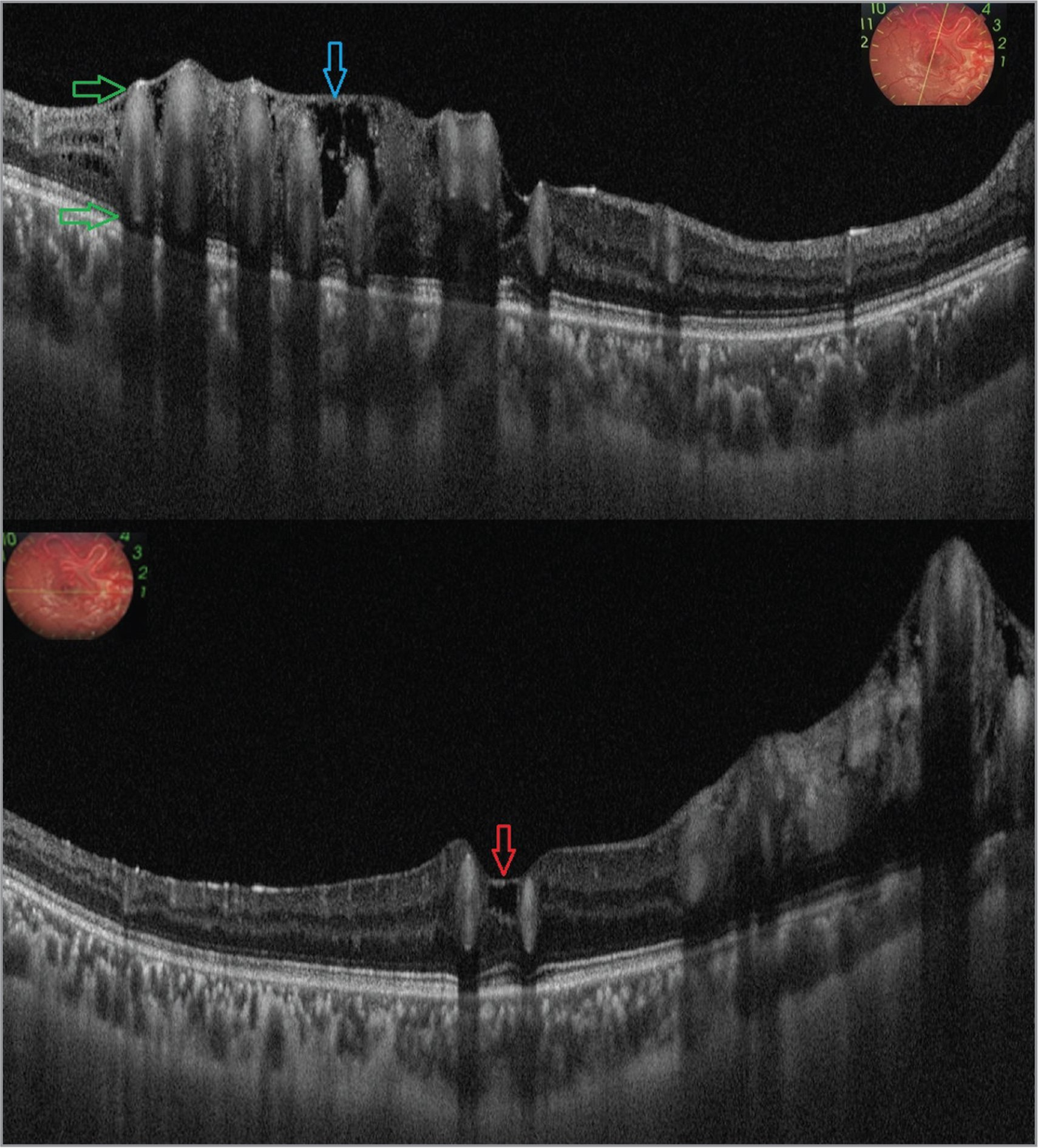 (Top) Swept-source optical coherence tomography (vertical scan) shows larger-caliber vessels spanning the entire thickness of the retina (green arrows). Schisis areas are seen just beneath the internal limiting membrane (ILM) (blue arrow; inset shows scan orientation). (Bottom) Foveal contour is lost with elevation of the ILM (red arrow) above the outer retinal layers due to adjacent large anomalous vessels at the fovea. (Horizontal scan) Underlying outer retinal layers are intact. Absence of intraretinal and subretinal fluid is apparent (Inset shows scan orientation).