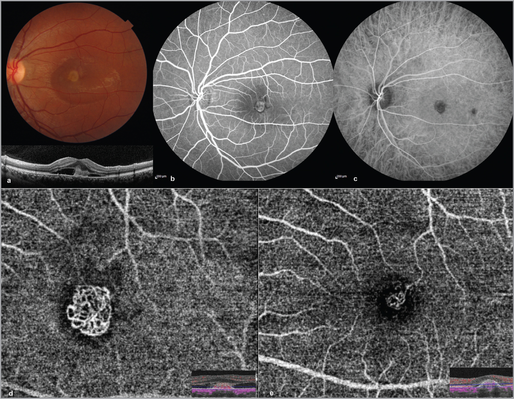 "(a) (Top) Fundus photograph of Patient 2 showing a cream-colored oval lesion at the macula with surrounding subretinal fluid, with an optical coherence tomography (OCT) scan (bottom) through the fovea showing a hyperintense reflective area in the outer retina at the fovea with subretinal fluid. (b) Fluorescein angiography image showing hyperfluorescence within the area of the suspected choroidal neovascularization (CNV). (c) Indocyanine green angiography (ICGA) showing an oval hypercyanescent area at the fovea surrounded by a hypocyanescent halo. Few individual vessels of the CNV can be identified on ICGA. (d) OCT angiography (OCTA) images segmented through the deep retina showing the same network of vessels more clearly at higher magnification. Inset shows the segmentation level on the OCTA B-scan image. (e) Post-treatment OCTA images showing a significant reduction in size of the lesion (> 50%), yet some of the individual vessels can still be recognized (""moderate resolution""). Inset shows the segmentation level on the OCTA B-scan image."