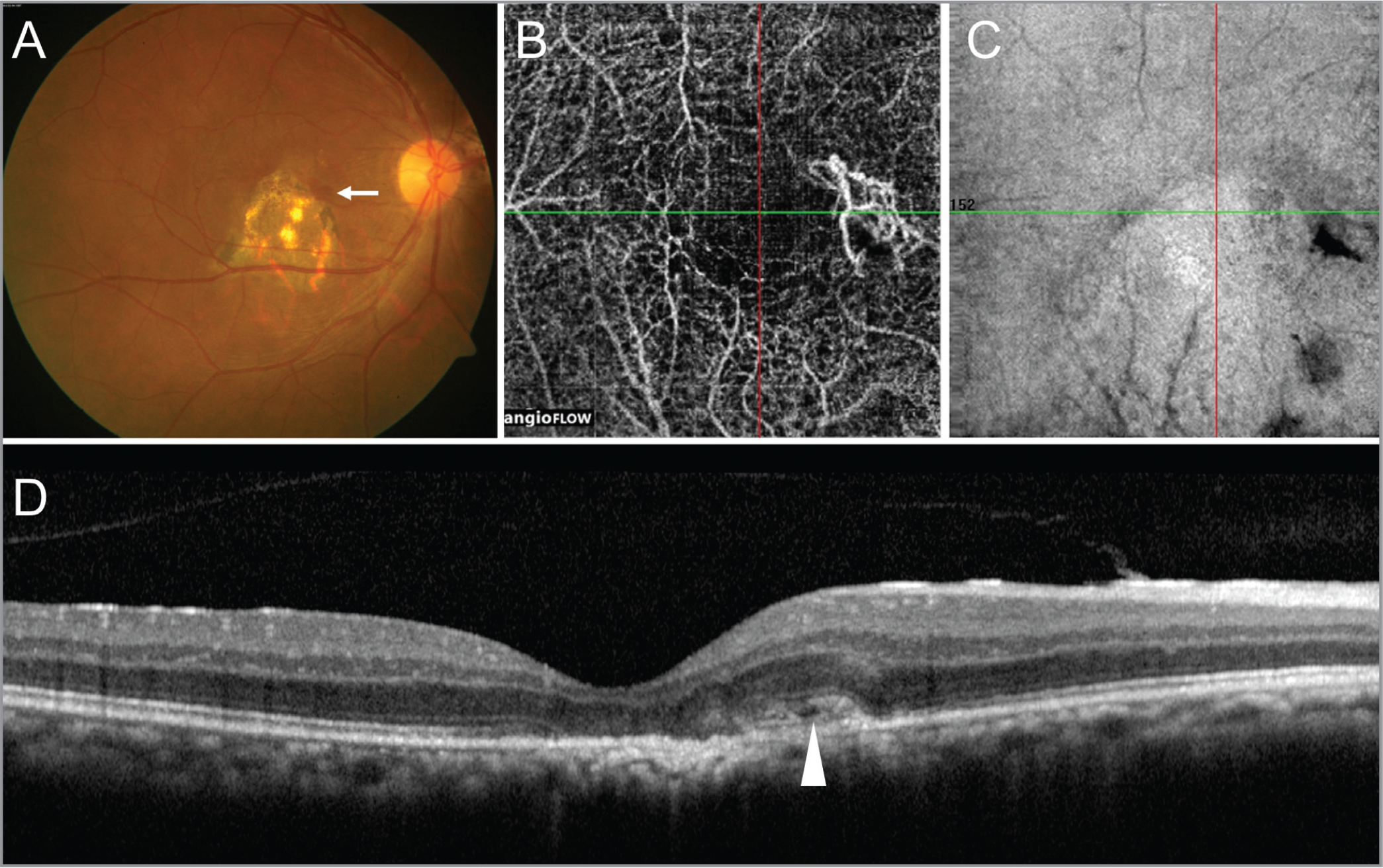 (A) Fundus photograph of the right eye at 7-month follow-up shows a healed pigmented chorioretinal scar at the site of the choroidal granuloma with the presence of a retinal hemorrhage at the edge of the scar (white arrow). Optical coherence tomography angiography (OCTA) en face image (obtained by adjusting the automatic segmentation slab at the choriocapillaris level so that the upper retinal pigment epithelium [RPE] reference offset was −9 μm and the lower RPE reference offset was 19 μm) reveals a network of vessels that stands out from the rest of the projection artefacts, suggestive of choroidal neovascularization (CNV). (C) The corresponding structural en face OCT image does not show any signal transmission defects. (D) OCT line scan passing through this area shows the disruption of the outer retinal layers, including the external limiting membrane and ellipsoid zone in the subfoveal region, with adjacent outer retinal hyperreflectivity suggestive of a type 2 CNV.