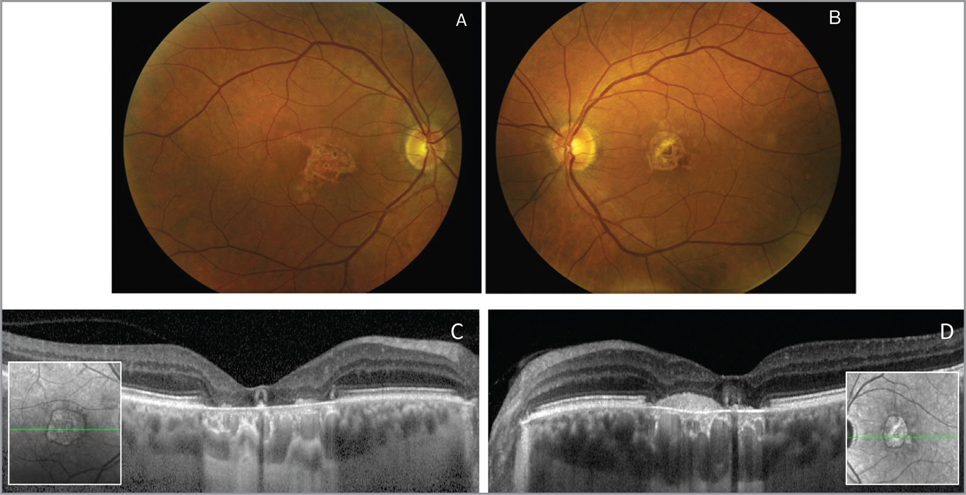 Color fundus photo (A, B) at 30 months post-presentation showing central retinal pigment epithelium (RPE) atrophy and irregular pigmentary clumping. Spectral-domain optical coherence tomography (C, D) reveals outer retinal and RPE atrophy in both eyes with loss of the ellipsoid band. There is hyperreflective material in the subretinal space in the left eye (D) more than the right eye (C). Enhanced depth imaging reveals preservation of the large choroidal vessels but choriocapillaris loss.