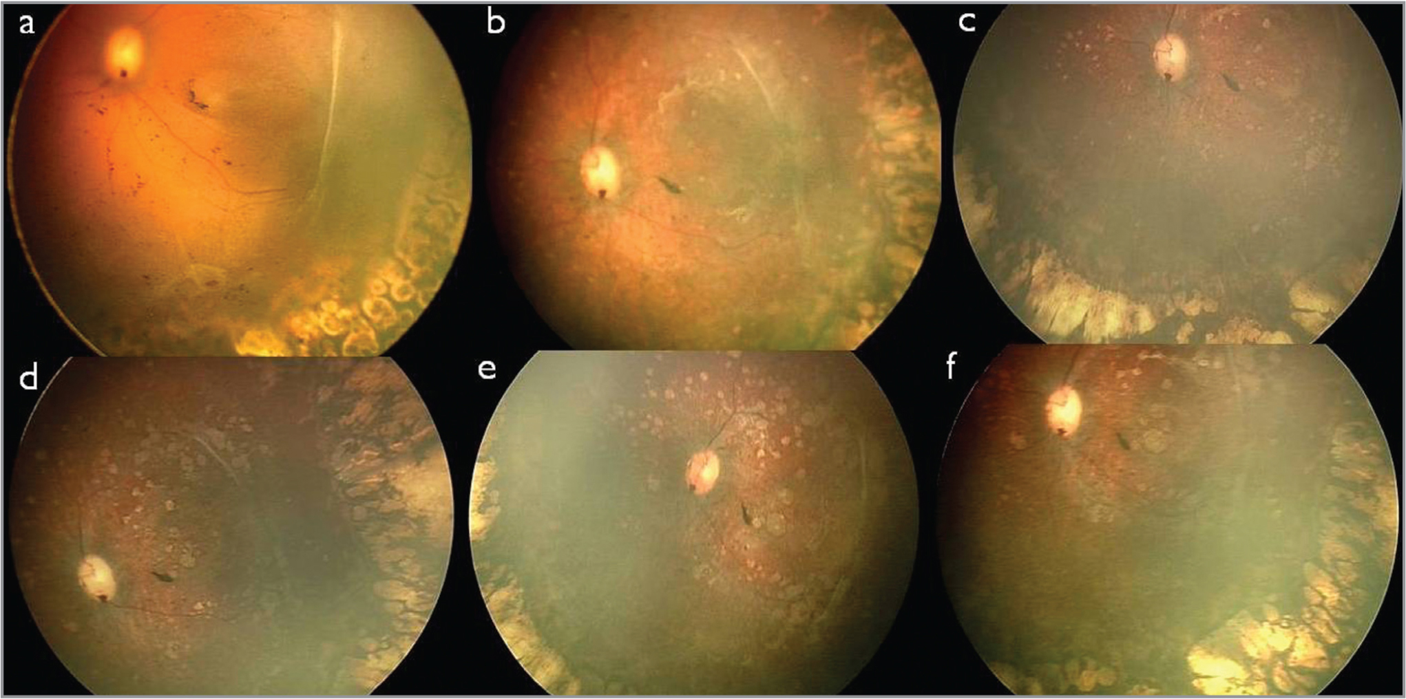Montaged fundus images of the left eye showing sequential changes in the left eye post-vitrectomy. (a) A detached posterior pole with a retinal break in the inferotemporal quadrant; the peripheral lasered retina is attached. (b, c, d, e, f) Spontaneous reattachment of the retina with no apparent hole and multiple depigmented spots at the posterior pole that increased in size and number during follow-up at 2.5, 7, 8, 13, and 18 months post-surgery, respectively.