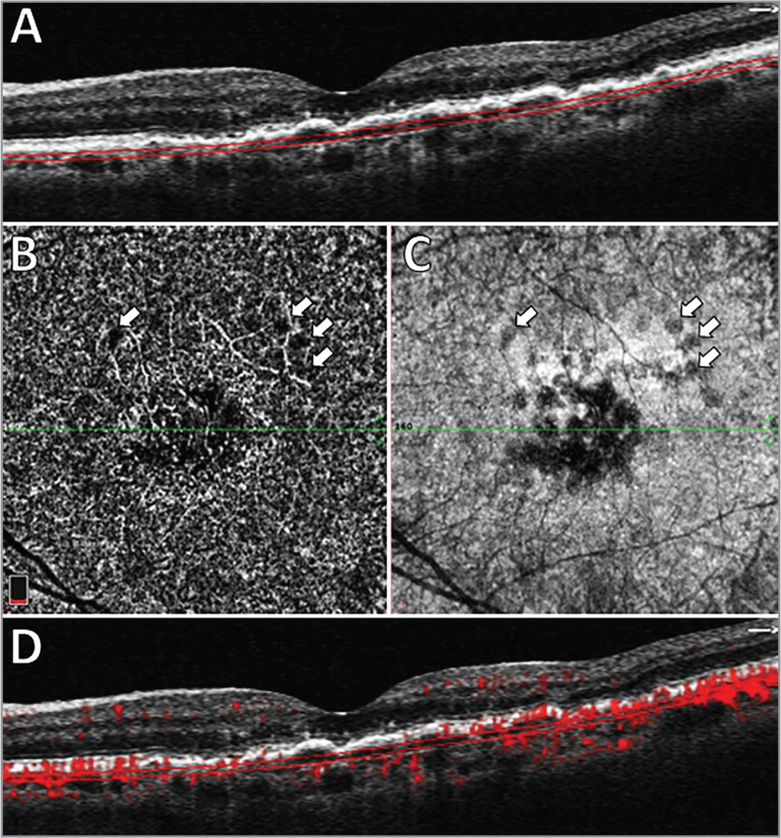 (A) Structural optical coherence tomography (OCT) B-scan shows macular drusen. The parallel red lines indicate the automatic segmentation of the choriocapillaris (CC). (B) En face OCTA flow image of the CC, demonstrating a dark central area and some dark spots surrounding (arrows), which indicates apparent flow impairment. (C) Structural image of the CC, showing a hyporeflective central area, corresponding to an attenuation of the signal from the CC, probably caused by the drusen. (D) OCT angiography B-scan demonstrating sparse areas of decreased decorrelation under the drusen. The white arrows represent the same anatomical point as in B and C, corresponding to signal impairment related to the drusen.
