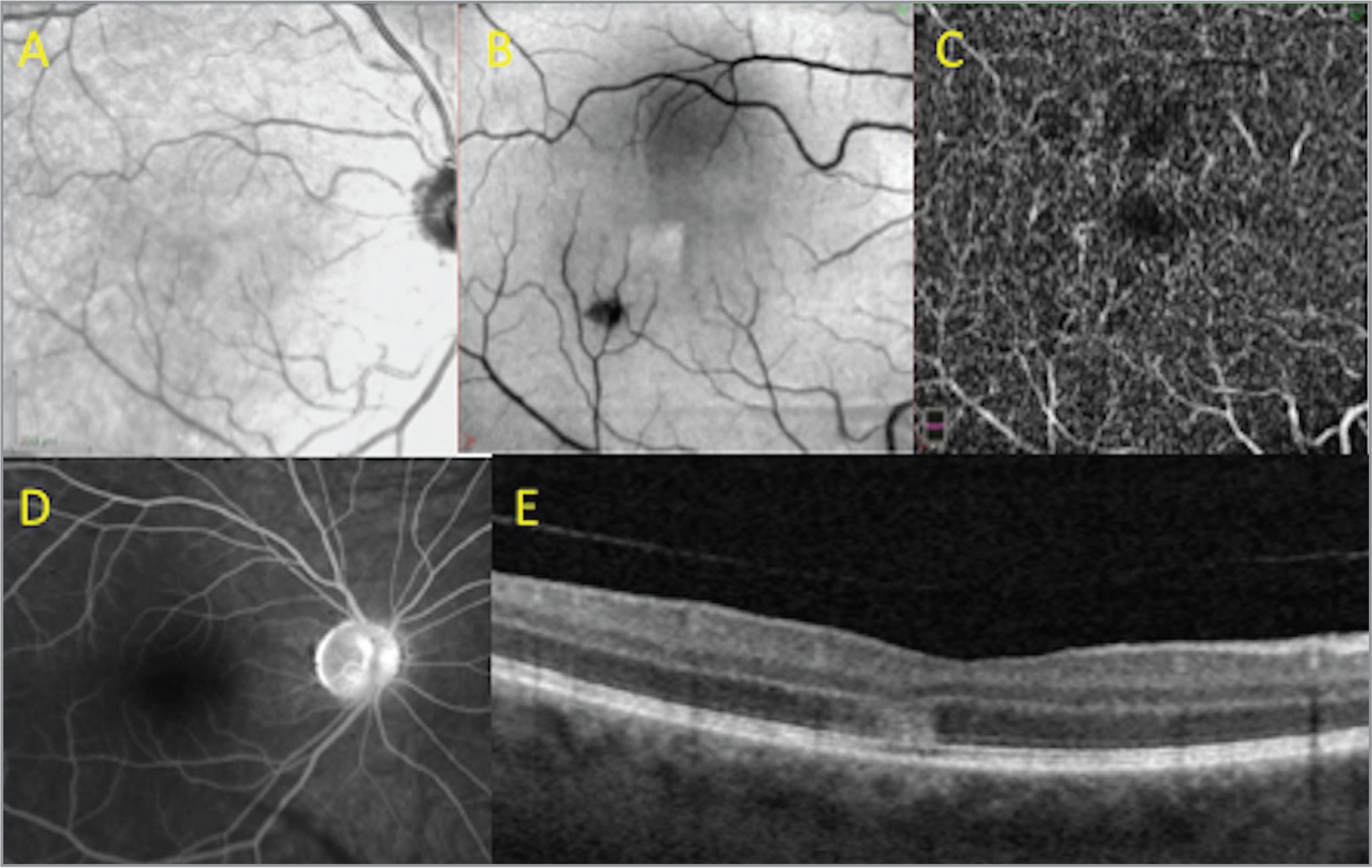 Right eye of patient 3 at presentation. Near infrared reflectance imaging showed a very subtle hyperreflective area inferonasal to the fovea (A). En face optical coherence tomography (OCT), 6 mm × 6 mm, segmented at the level of the outer retina showed a corresponding hyperreflective lesion with the apex pointing toward the central fovea and a hyporeflective, smaller, round lesion that represented the masking effect of a cotton-wool spot (B). OCT angiography, 3 mm × 3 mm, at the level of the deep capillary plexus, revealed a subtle area of hypoperfusion inferotemporally (C). Fundus fluorescein angiography was unremarkable (D). OCT B-scan revealed a small area of thickening and hyperreflectivity of the outer plexiform layer, outer nuclear layer, and ellipsoid zone (E).