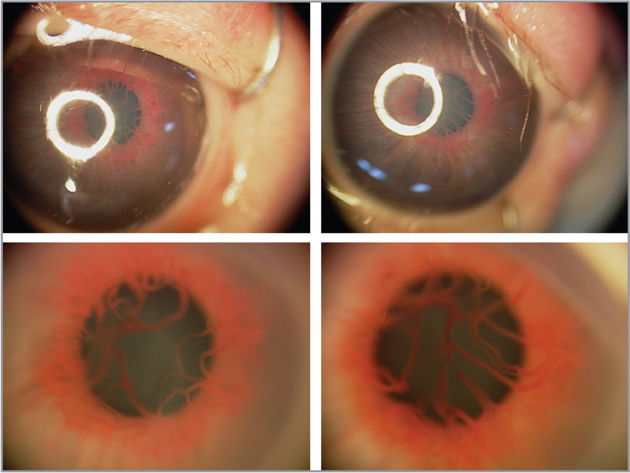 Top row demonstrates low-magnification views of the anterior chamber and iris of the right and left eyes. There is a thickened, elevated vascular network at the pupillary margin for 360°. Bottom row demonstrates high-magnification views of the same eyes demonstrating an exuberant, engorged iris neovascularization extending into the radial vessels. The pupil diameter in the bottom row is unchanged from the top row but appears larger due to smaller field of view.