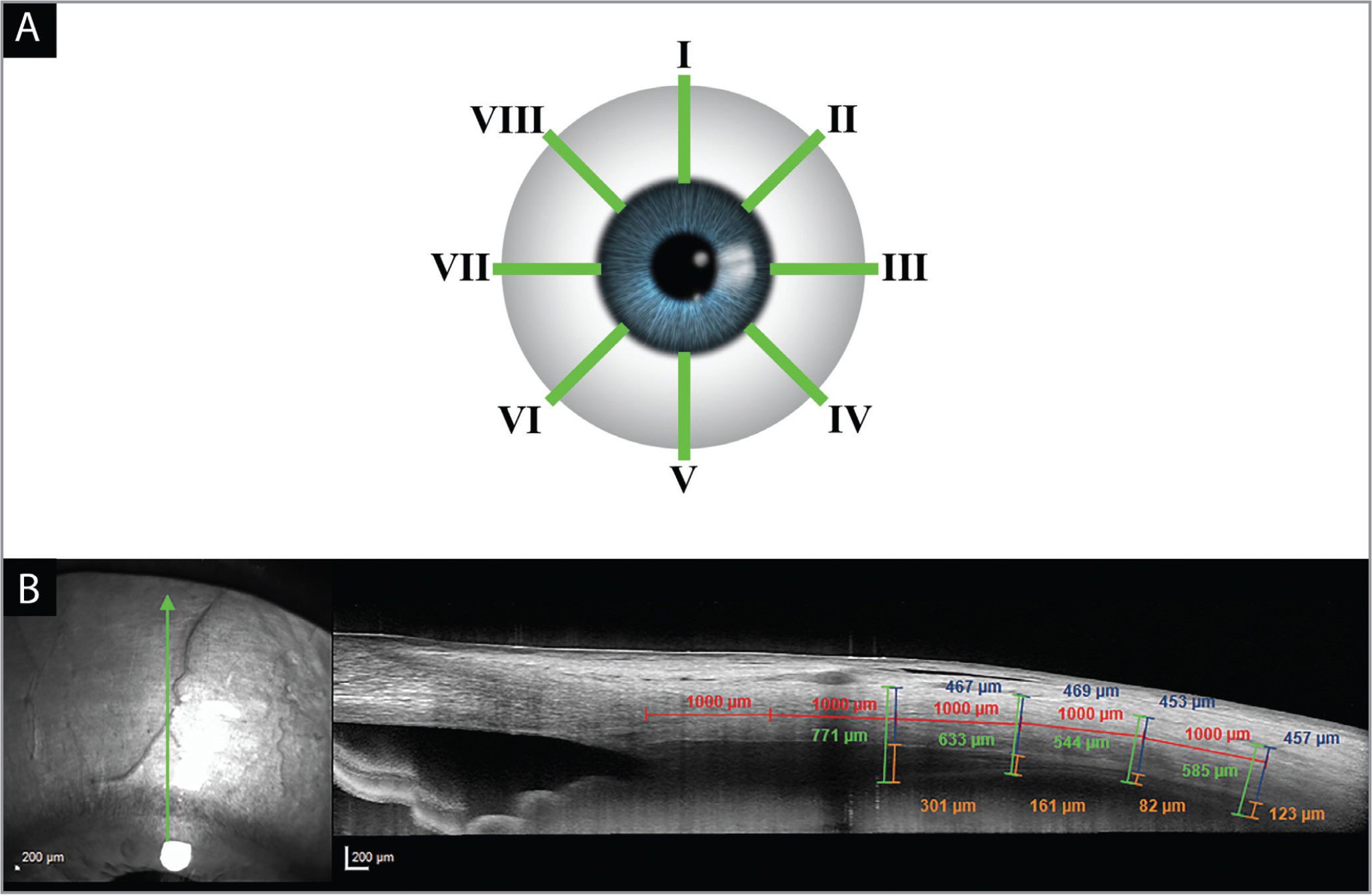 Visual representation of the different anterior-segment spectral-domain optical coherence tomography (AS-OCT) scan quadrants labelled in green (A). Starting from the 12-o'clock position on the right eye and proceeding clockwise: superior (I), superior-nasal (II), nasal (III), inferior-nasal (IV), inferior (V), inferior-temporal (VI), temporal (VII), and superior-temporal (VIII). Below, a superior AS-OCT scan of a study eye prior to suprachoroidal CLS-TA injection (B). The calipers used to analyze the thicknesses of the choroid (orange), sclera (blue), and choroid plus suprachoroidal space plus sclera (green) are displayed along with 1,000 μm incremental measurements posterior from Schlemm's canal (red).