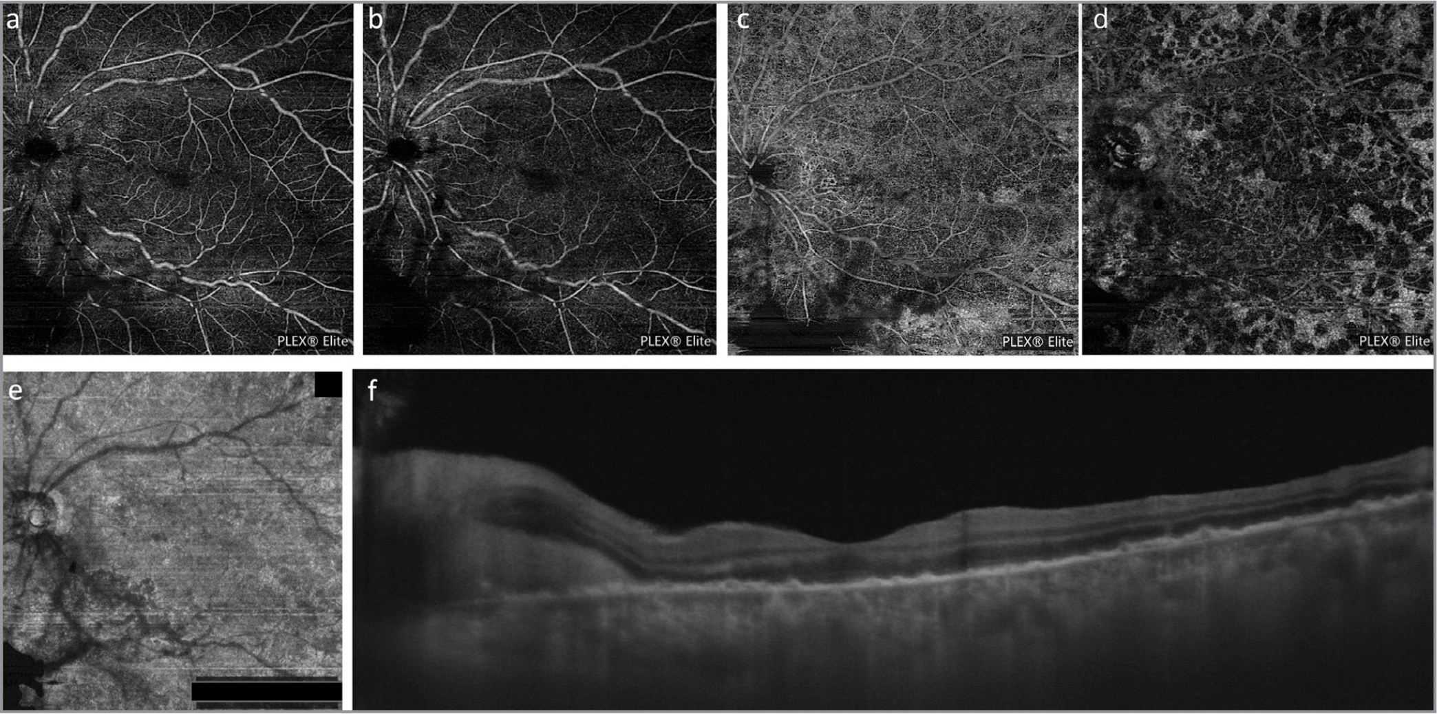 Swept-source optical coherence tomography (OCTA) 12 mm × 12 mm scan at the level of the superficial (a) and deep capillary plexus (b) does not show any structural retinal abnormality. At the level of the outer retina to choriocapillaris slab, (c) multiple dark spots are seen, and OCTA slab at the level of choriocapillaris (c) also shows presence of multiple dark areas scattered all across the posterior pole. Corresponding en face OCTA does not reveal any segmentation or structural abnormality (e). There is, however, an overlying shadow artifact due to vitreous opacities, which projects on all the slabs (a–e). Enhanced depth imaging OCT (f) shows multiple retinal pigment epithelium drusenoid-like elevations, peripapillary subretinal hyperreflective material, and a thickened choroid.
