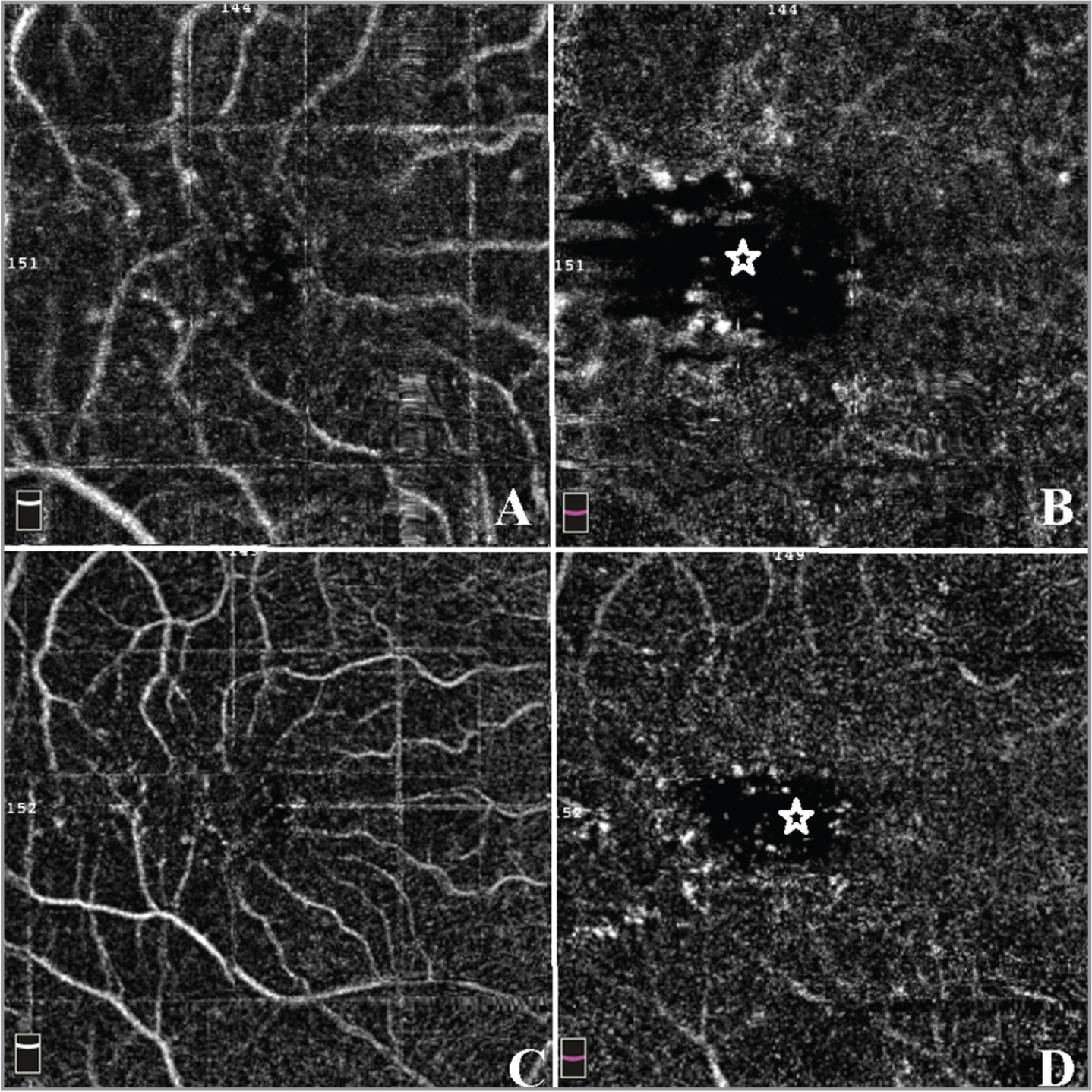 En face optical coherence tomography example of patient with diabetes with retinopathy. (A) 3 × 3 superficial capillaries area. (B) 3 × 3 deep capillaries area. (C) 6 × 6 superficial capillaries area. (D) 6 × 6 deep capillaries area. The star marks the irregularly increased foveal avascular zone area.