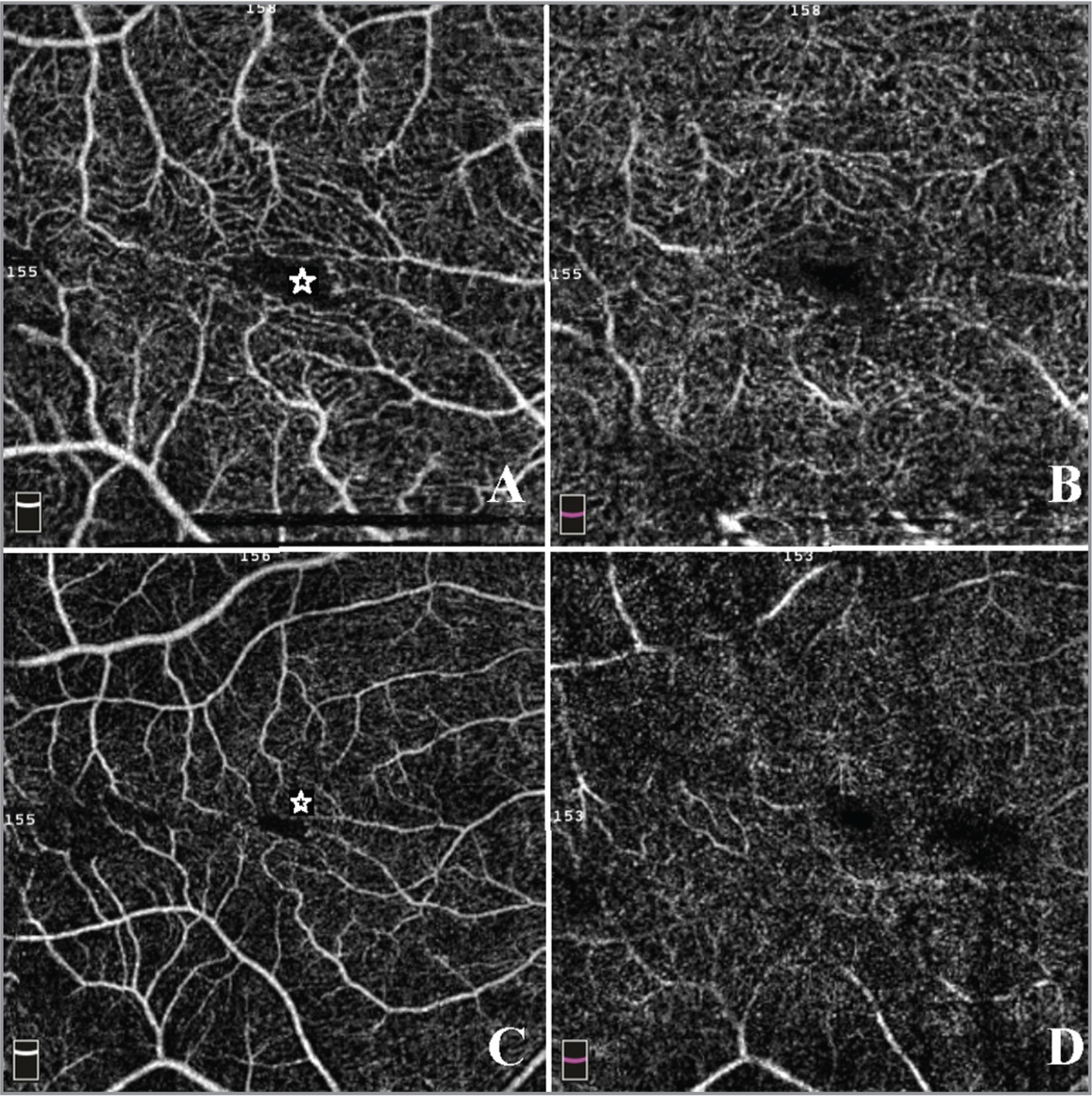 En face optical coherence tomography example of a patient with epiretinal membrane (ERM). (A) 3 × 3 superficial capillaries area. (B) 3 × 3 deep capillaries area. (C) 6 × 6 superficial capillaries area. (D) 6 × 6 deep capillaries area. The star marks the irregular form of the foveal avascular zone, caused by the ERM vessel dragging in the retinal superficial layer.