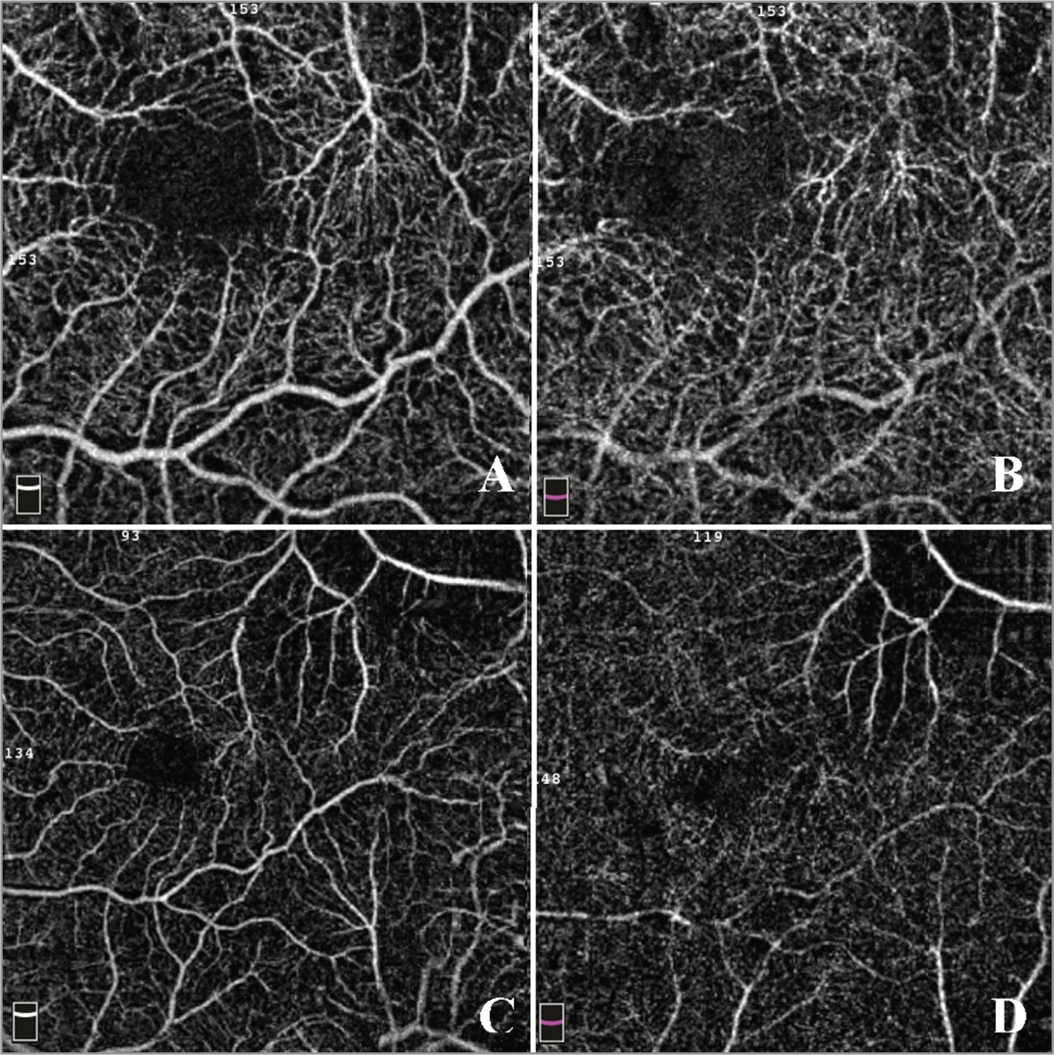 En face optical coherence tomography example of a patient with exudative age-related macular degeneration with no vascular abnormalities. (A) 3 × 3 superficial capillaries area. (B) 3 × 3 deep capillaries area. (C) 6 × 6 superficial capillaries area. (D) 6 × 6 deep capillaries area.