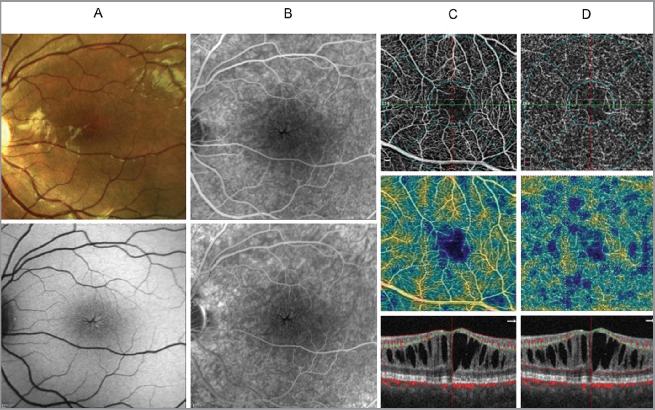 Images of the left eye of the proband (III:3). Color fundus photograph showing a spoke-wheel pattern of fold-like changes radiating out from the fovea (A, top panel). Fundus autofluorescence (FAF) showing spoke-wheel pattern of hyper- and hypo-FAF (A, bottom panel). Early and late fundus fluorescein angiography (FFA) showing macular schisis cavities were not associated with late leakage (B, top and bottom panels). Optical coherence tomography (OCT) angiography of the superficial plexus (B, top panel) and deep plexus (C, top panel) with corresponding perfusion vessel density maps (B and C, middle panels, respectively) showing vessel rarefaction in the superficial plexus and deep plexus with no flow areas of cystoid appearance in the deep plexus. Corresponding structural OCT horizontal scan spectral-domain OCT images from the vertical and horizontal scans centered on the fovea showed schisis in the ganglion cell layer in the parafoveal region and in the inner nuclear layer from the foveal to the extrafoveal region (B and C, bottom panel).