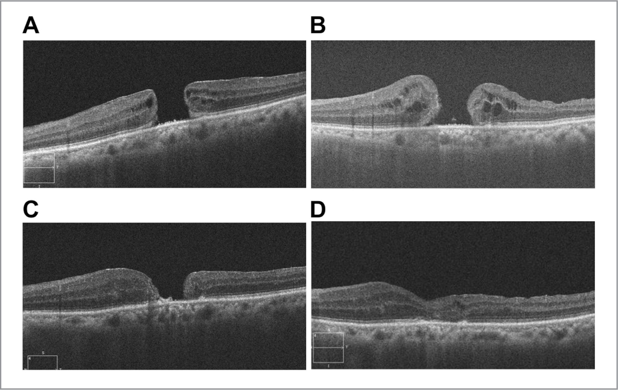 (A) Preoperative photograph of the left eye obtained by optical coherence tomography. (B) Four months after the first surgery, the full-thickness retinal tissue defect persisted. (C) Two months after the second surgery, the macular hole was smaller but had not closed. (D) Four months after the third surgery, the hole was closed.
