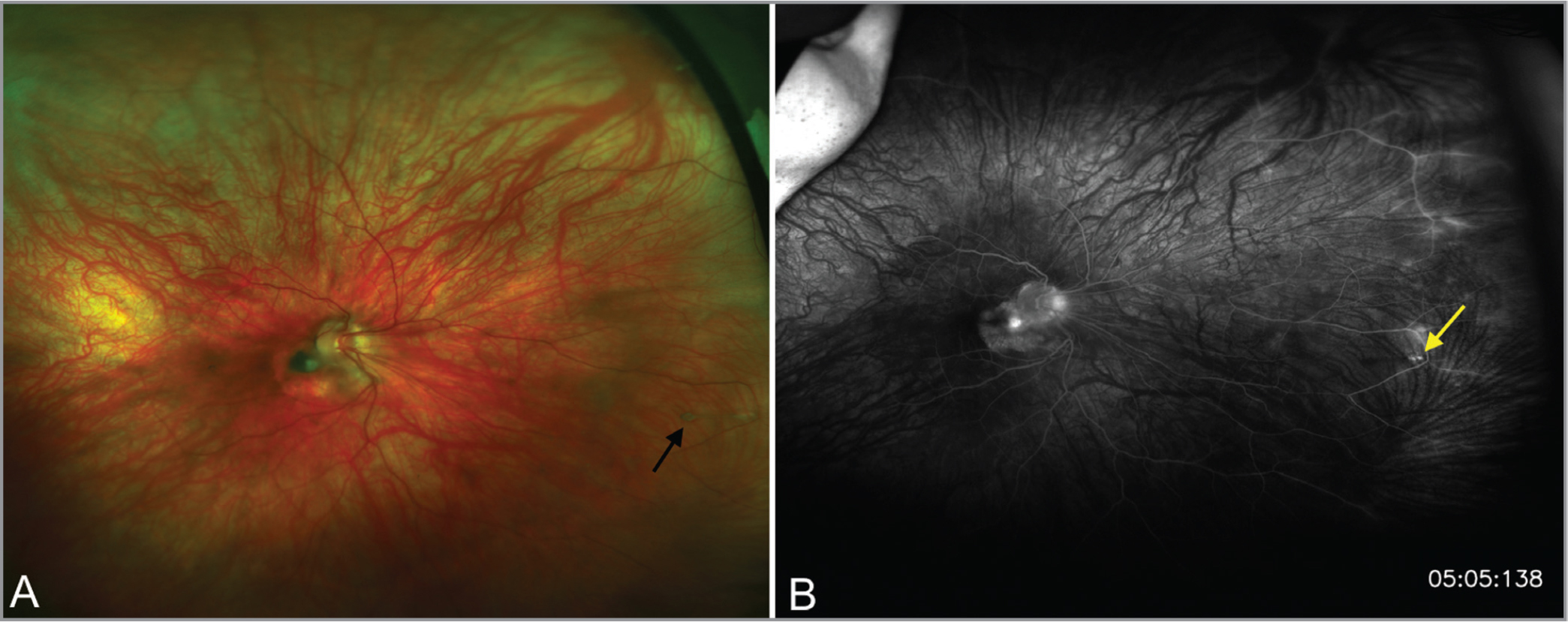 Fundus photograph and fluorescein angiogram (FA) of the right eye in Case 3. (A) Widefield fundus photograph demonstrating a peripapillary lesion with surrounding peripapillary atrophy, nasal dragging of retinal vasculature, and a persistent fetal vasculature stalk in the nasal periphery (black arrow) and (B) late FA demonstrating late staining at the base of the vitreal stalk consistent with a window defect without filling of the stalk (yellow arrow).