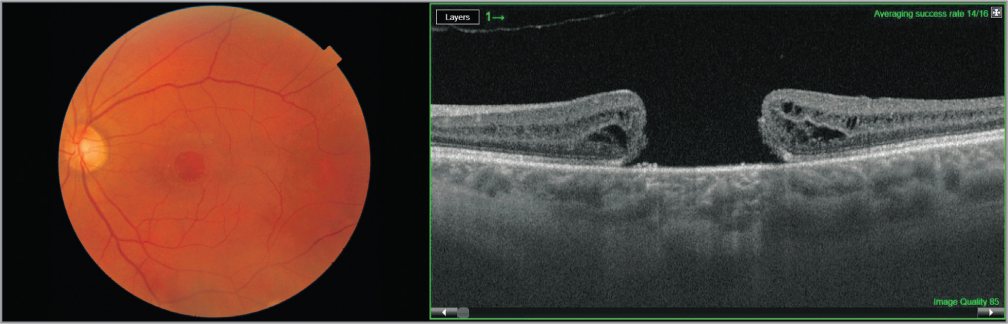 (a) Native fundus photo at the time of presentation. Macular hole (MH): the apex measurement of 700 μm and the base measurement of 900 μm; best-corrected visual acuity (BCVA): 20/200. (b) Optical coherence tomography scan at the time of presentation. MH: the apex measurement of 700 μm and the base measurement of 900 μm; BCVA 20/200.