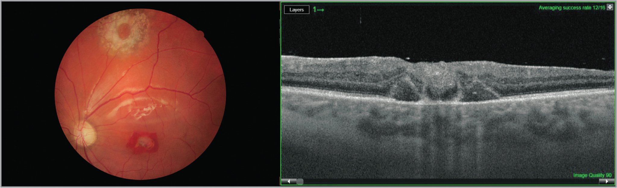 (Left) Native fundus photo with closed macular hole and harvested site; at 1-month follow-up with best-corrected visual acuity (BCVA) of 20/60. Silicone oil tamponade. (Right) Optical coherence tomography scan at 1-month follow-up with BCVA 20/60. Silicone oil tamponade.