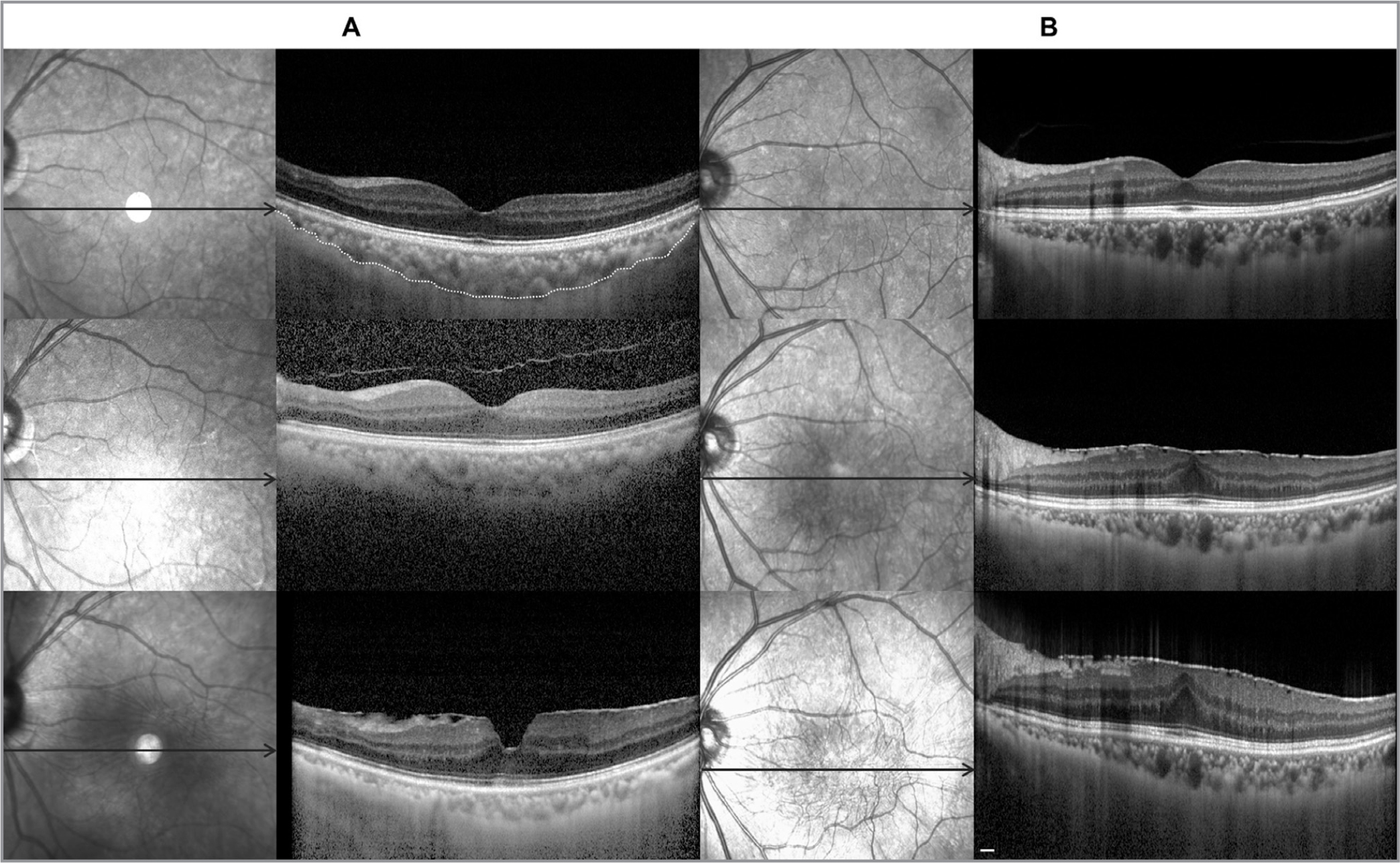 Changes of macular choroidal thickness in the patients with epiretinal membrane (ERM) development (new-onset) and progression by optical coherence tomography (OCT). Combination images of an en face infrared section and a horizontal enhanced depth B-scan of OCT. The average macular choroidal thickness was measured at 15 points with 500 μm intervals from the horizontal scan. (A) A 59-year-old female patient with new-onset and progression of ERM in the left eye. The macular choroidal thickness was 250.0 μm at baseline and decreased significantly to 124.6 μm after 34 months. The choroid-scleral boundary was indicated by the dotted line in the uppermost image. (B) A 65-year-old female patient with marked progression of ERM in the left eye. During the 39-month follow-up period, choroidal thickness was significantly reduced, to approximately 30.4% of the baseline. Scale bar 200 µm.