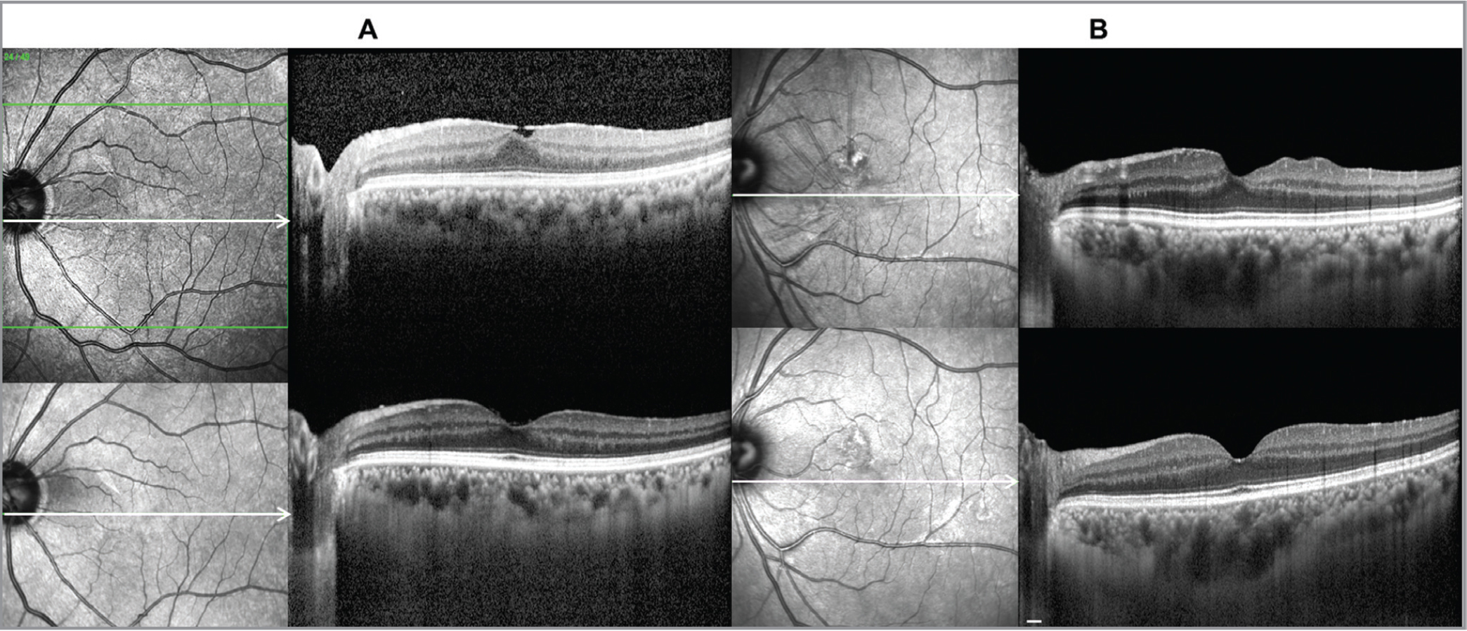 Changes of macular choroidal thickness in the patients with epiretinal membrane (ERM) resolution by optical coherence tomography (OCT). (A) A 57-year-old male patient with spontaneous ERM regression in the left eye. During the 48-month follow-up period, choroidal thickness increased significantly to approximately 20.4% of the baseline. (B) A 57-year-old female patient with nearly complete resolution of macular pucker in the left eye. Macular choroidal thickness after 48 months (329.5 μm) was almost similar to baseline choroidal thickness (329.3 μm), thicker than that of the fellow eye (214.9 μm). Scale bar 200 μm.