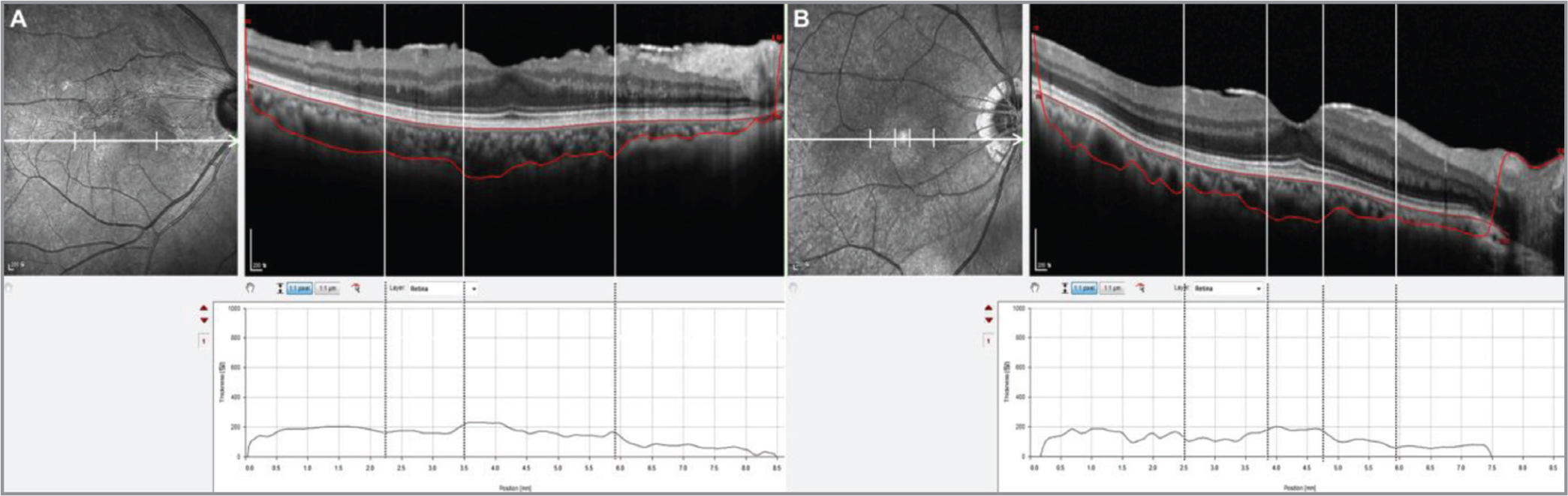 Choroidal thickness map thickness map showing a topographical association between the presence of hyperreflective epiretinal membrane (ERM) and a decrease in choroidal thickness in the corresponding region. Combination images of an en face infrared section and a horizontal enhanced depth B-scan of spectral-domain optical coherence tomography (OCT). The macular choroidal thickness was automatically measured at each each point from the horizontal scan. A 68-year-old female patient (A) and a 72-year-old male patient (B) with ERM in their right eyes demonstrated irregular choroid/sclera boundaries. The choroidal thickness of the region, where thick hyperreflective ERM is seen on OCT image (designated by the vertical lines), appears to be relatively thinner than other regions without hyperreflective ERM. The basement membrane and choroid-scleral boundary were indicated by the upper and lower red lines in the image, respectively. Horizontal scale bar 200 µm.