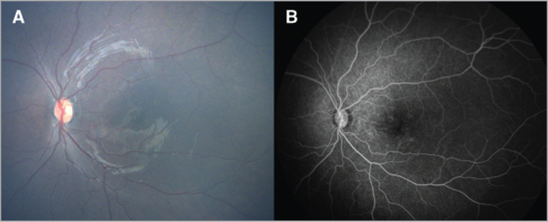 Patient 2. Wide-angle fundus and fluorescein angiography images obtained from an infant with congenital Zika syndrome. (A) Unremarkable fundus in the left eye (OS). (B) Areas of window defects in the macula OS.