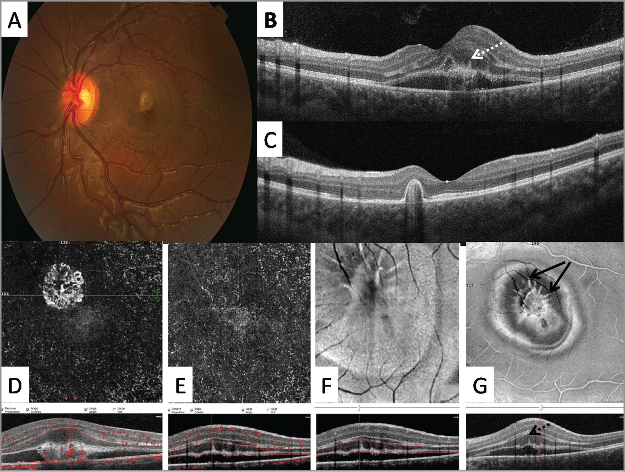 "Color fundus photography (A), optical coherence tomography (OCT) (B, C), en face OCT angiography (OCTA) (D, E), and en face structural OCT (F, G) images from an 8-year-old girl with laser-induced choroidal neovascularization (CNV). Radial hyperreflective lines (ie, the ""pitchfork"" sign, dashed white arrow in B and dashed black arrow in G) extending from the type 2 neovascular membrane, identified as subretinal hyperreflective material (SHRM), are noted with the baseline cross-sectional OCT B-scan (B); these linear lesions resolved after intravitreal bevacizumab therapy (C). Note the evolution into a type 1 CNV lesion after intravitreal anti-vascular endothelial growth factor therapy. The type 2 CNV lesion is identified with en face OCTA (D) but a corresponding flow signal for the radial spikes is absent (E). The linear lesions (solid black arrows in G) are more clearly visible in the baseline 6 mm x 6 mm en face OCT image with segmentation of the outer retina (G) and display a remarkable spiked-wreath pattern."