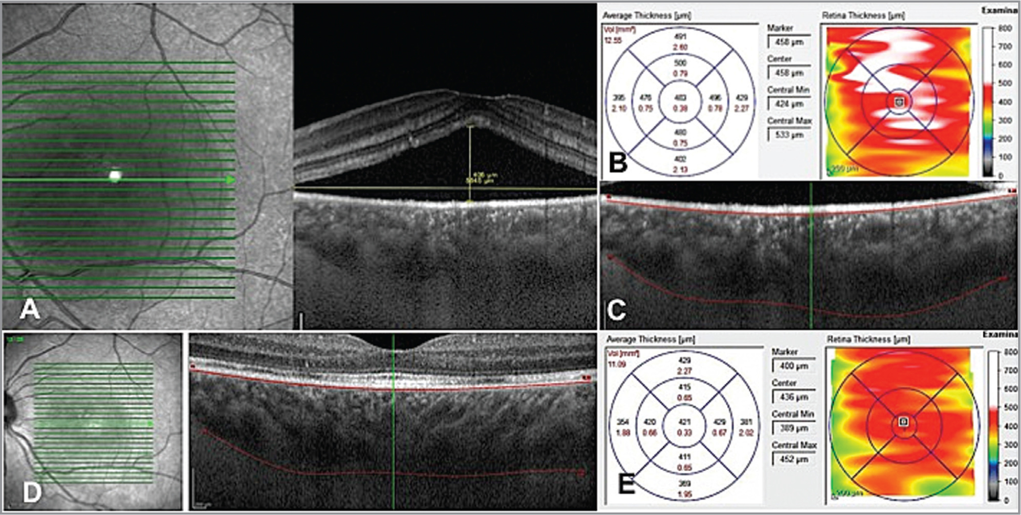 Optical coherence tomography findings and thickness of an acute central serous chorioretinopathy treated with eplerenone. (A) Infrared picture of the patient with subretinal fluid measurement and shaggy surface of photoreceptor layer. Choroidal volume (B) and thickness (C) are increased significantly in the primary visit. After 3 months of consuming eplerenone, the thickness (D) and volume (E) are diminished significantly.