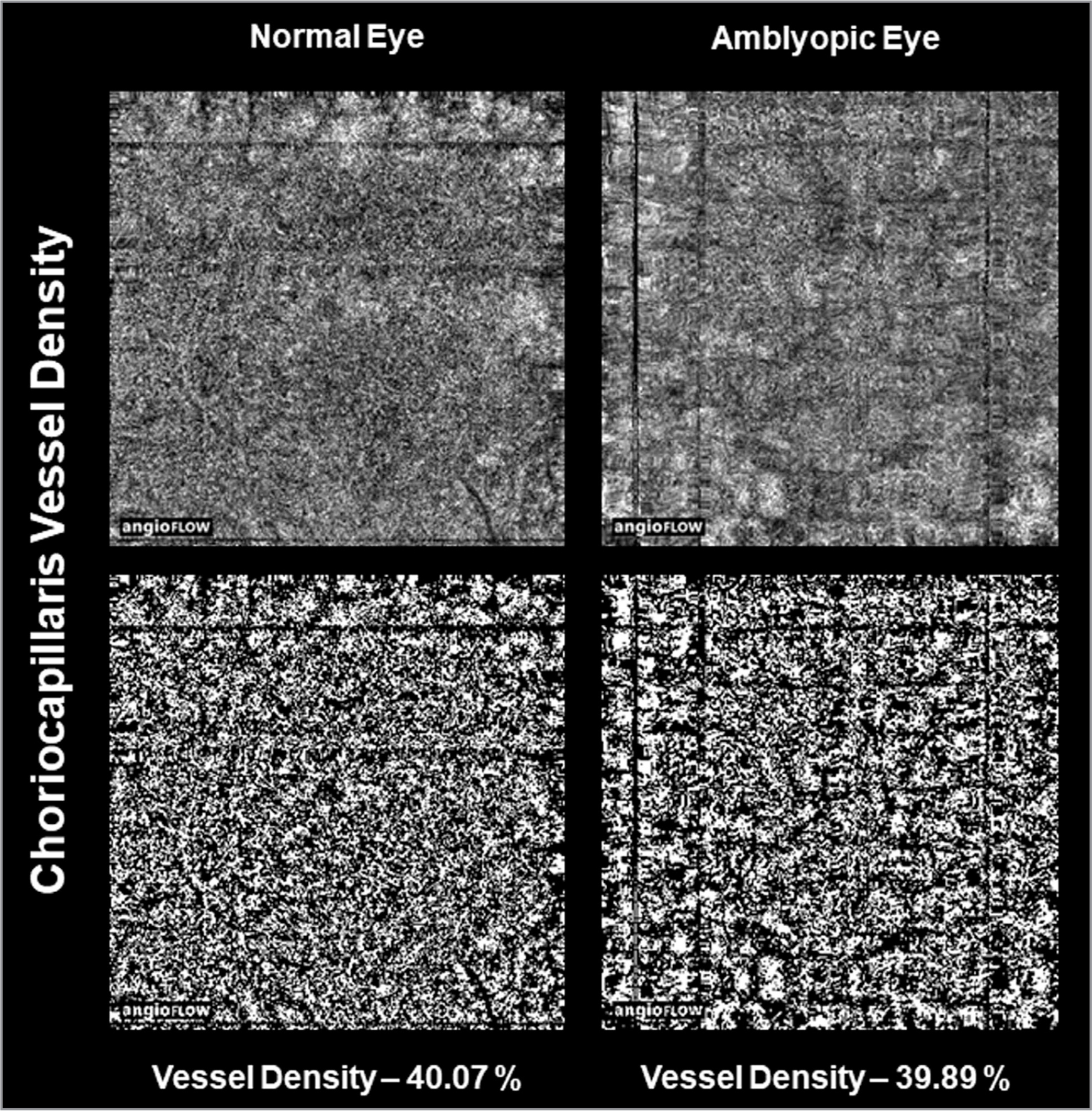 Image highlights attenuated choriocapillaris in the amblyopic eye in comparison to fellow eye.