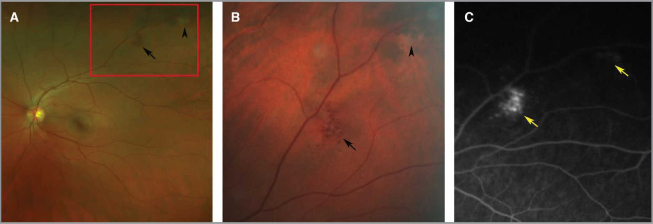 Clinical images of a retinal cavernous hemangioma. (A) Widefield fundus photography shows two peripheral lesions along the superior arcade in the left eye. (B) Closer inspection reveals a cluster of saccular aneurysms (black arrow), as well as a more distal lesion with an overlying gray-white fibrotic membrane (black arrowhead). (C) A late frame of the fluorescein angiogram demonstrates punctate staining of the aneurysms (yellow arrows) without overt leakage.