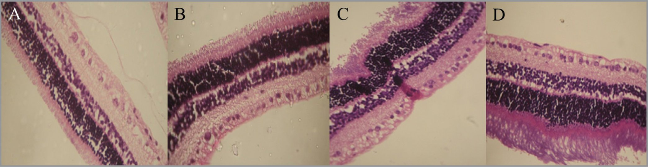 Light micrograph of 1.25 mg/mL intravitreal ziv-aflibercept-treated rabbit eye in (A) 1 day, (B) 7 days, (C) 14 days, and (D) 28 days. Micrographs show retinal cellular integrity and nuclei were prominent. No necrosis or atrophy were seen.