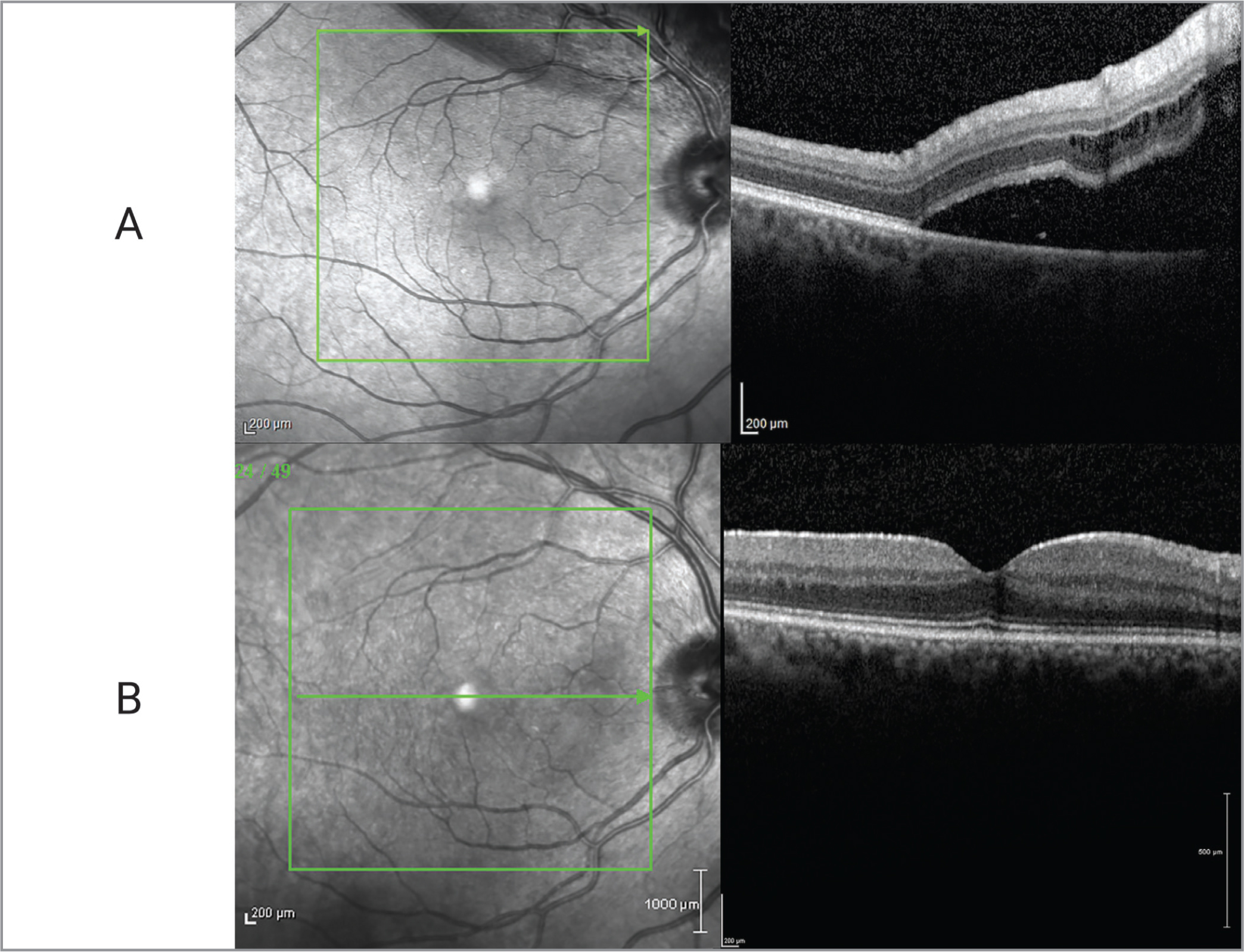 (A) Optical coherence tomography (OCT) demonstrating extended retinal detachment within the arcades and attached fovea on initial presentation. (B) OCT demonstrating healthy foveal contour with distinguished retinal layers at the 4-month postoperative visit.
