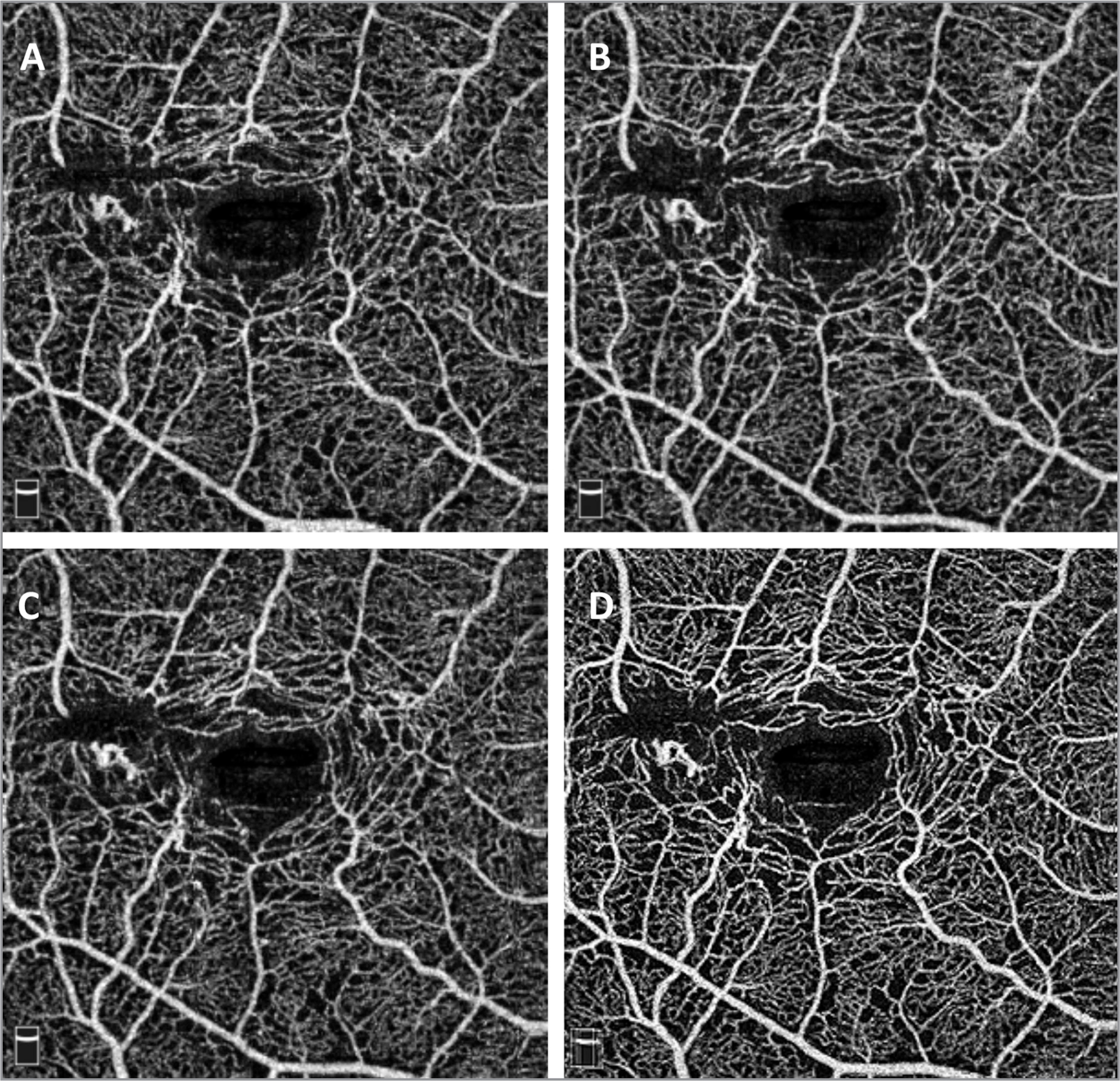 (A–C) 3.0 mm × 3.0 mm spectral-domain optical coherence tomography angiograms of the superficial capillary plexus scan taken using the Optovue Angiovue in a patient with macular telangiectasia (MacTel) type 2. (D) Photoshop averaged image of 3.0 mm × 3 .0 mm scans of the same patient with MacTel type 2 illustrating improved detail of the telangiectatic vessels of the superficial plexus.