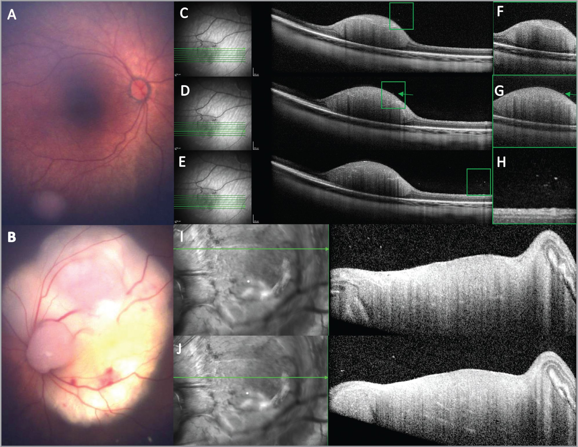 (A) Color photo of right eye with Group A retinoblastoma. (B) Color photo of left eye with Group C retinoblastoma with a large macular tumor. (C, D, E) Optical coherence tomography (OCT) of the right eye tumor shows small hyperreflective opacities (green boxes highlight areas of opacities). Note the proximity of the opacity to the tumor surface in figure D. (F, G, H) Higher magnification images of the corresponding opacities in C, D, and E. (I, J) Similar opacities were seen in the left eye on OCT. Spectral-domain OCT images were captured with the following parameters: 30° X 5° 7-line scan with an axial resolution of 3.87 μm/pixel for Figures C, D, E and 30° X 25° 61-line high-speed volume scan with an axial resolution of 3.87 μm/pixel for Figures I and J.