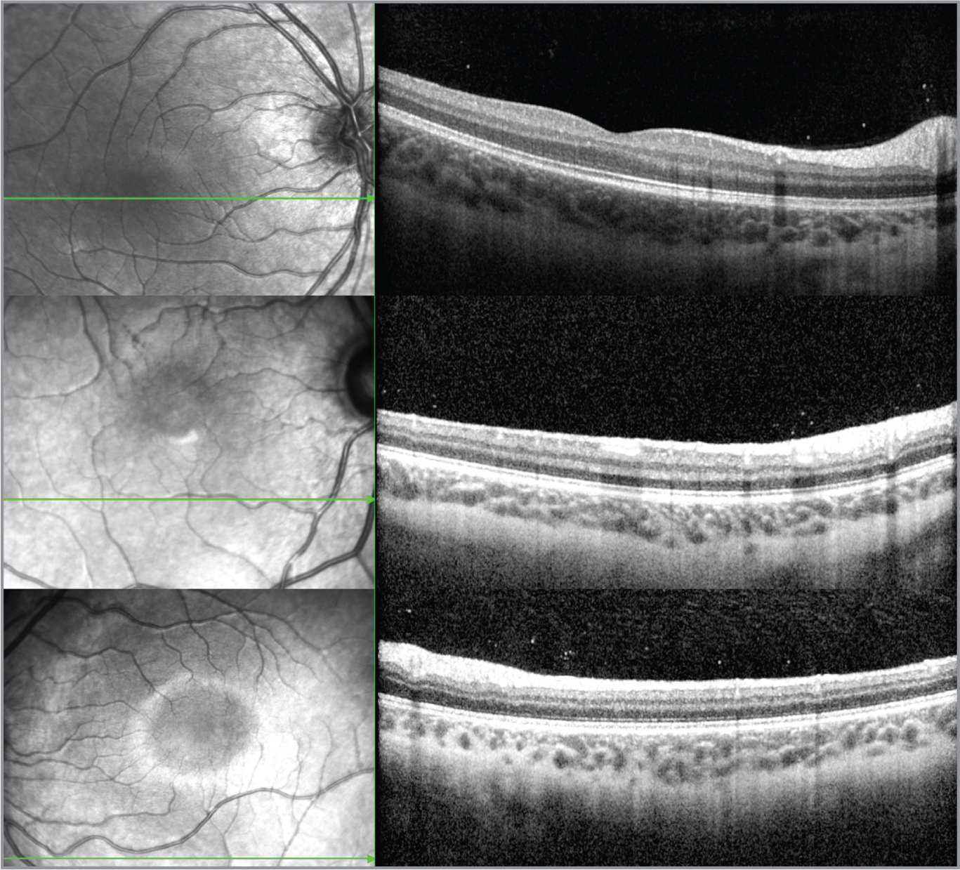 Three normal eyes of patients without vitreoretinal disease and normal findings on funduscopic exam demonstrate scattered hyperreflective vitreous opacities on optical coherence tomography. These images were captured with similar parameters: 30° X 25° 61-line high-speed volume scan with an axial resolution of 3.87 μm/pixel.