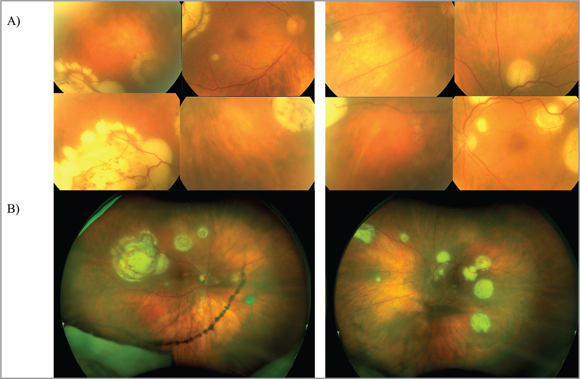Fundus photographs of multifocal chorioretinal lesions using 35° and widefield imaging.