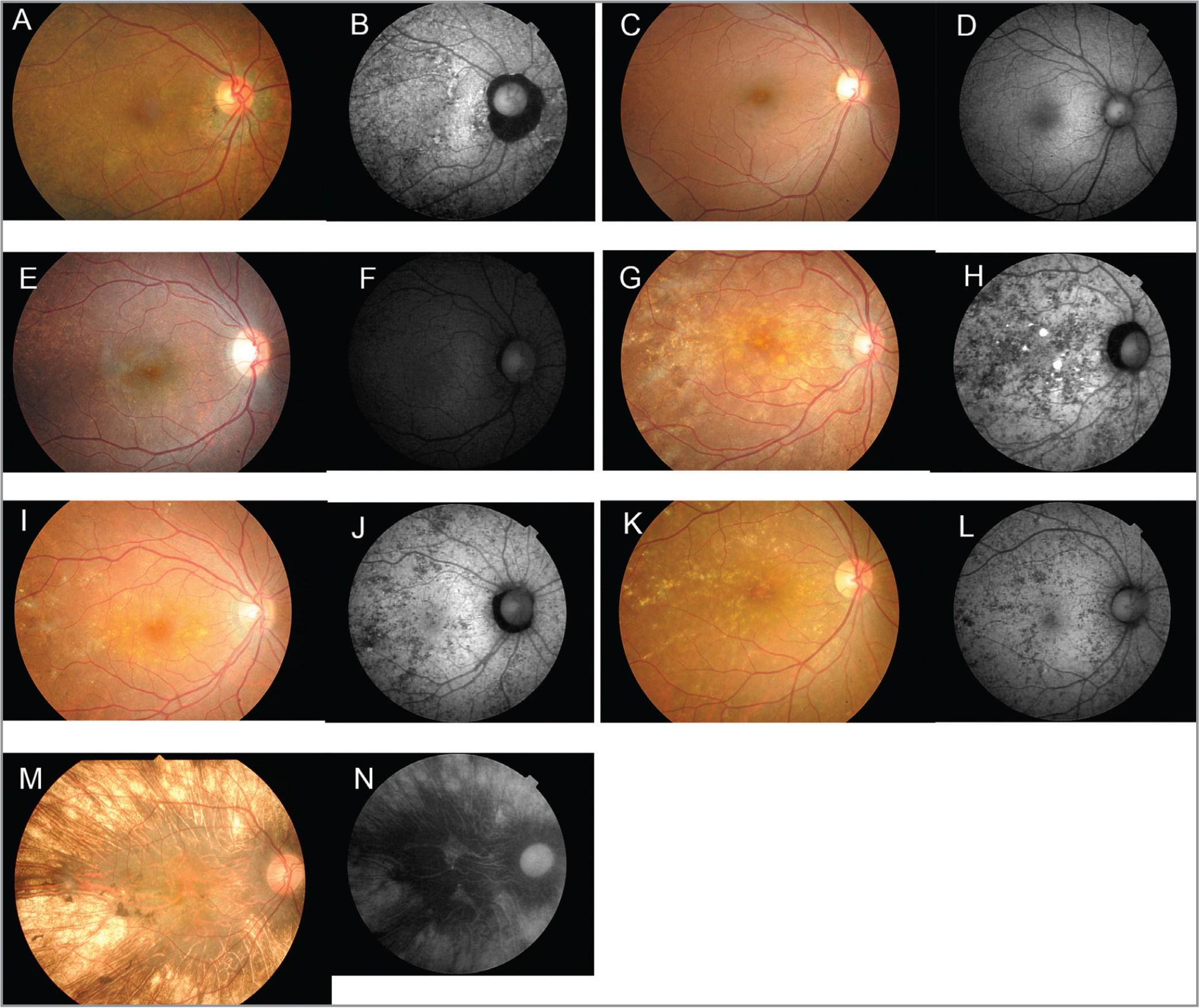 Fundus photographs and autofluorescence images of choroideremia carriers. Fundus photographs (A, C, E, G, I, K, and M) and fundus autofluorescence (FAF) images (B, D, F, H, J, L, and N) from Carriers 1 (A, B), 2 (C, D), 3 (E, F), 4 (G, H), 5 (I, J), and 6 (K, L) are shown. Results from a male patient with choroideremia (M, N) are also shown for comparison. Fundus photograph of Case 2 shows almost no abnormality, whereas Cases 1, 4, 5, and 6 show many drusenoid deposits. FAF images of Case 4 show mixed hyper- and hypoautofluorescence.