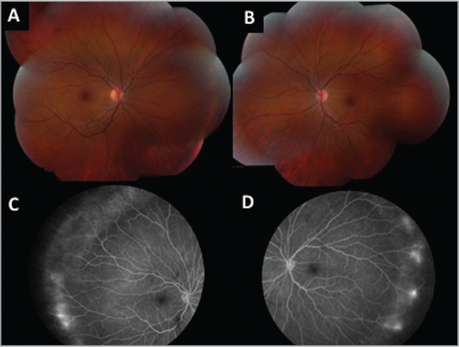 Color fundus images and late phase fluorescein angiography of the probands mother. (A) Right eye: Normal-appearing fundus. (B) Left eye: Evidence of vascular straightening. (C) Right eye: Peripheral leakage and nonperfusion. (D) Left eye: Peripheral leakage and nonperfusion.